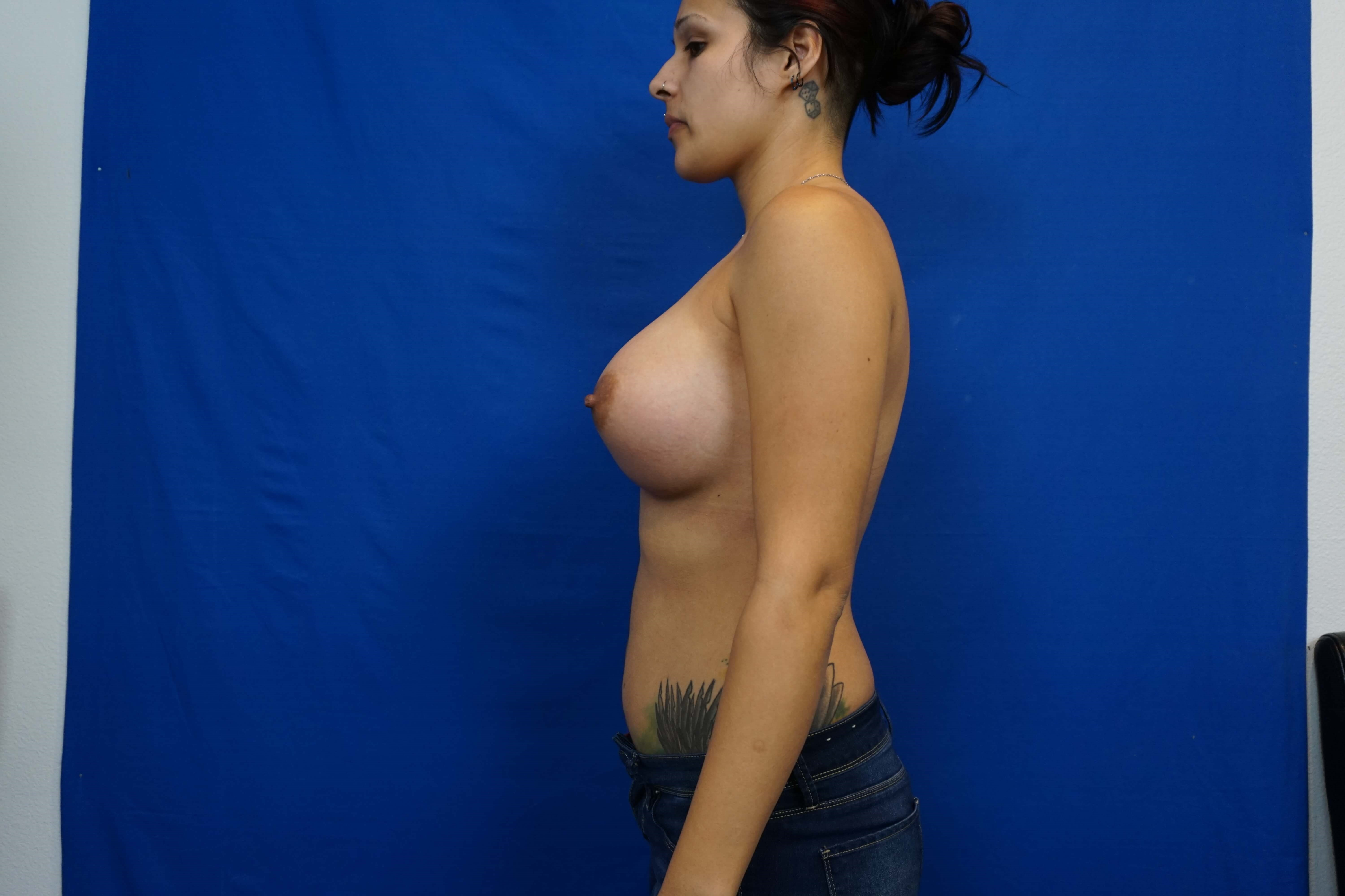 Tuberous Breast Treatment After