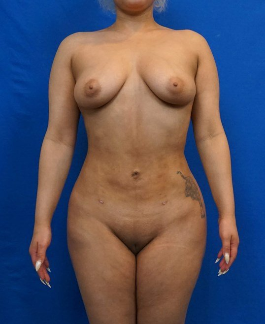 Liposuction Las Vegas After