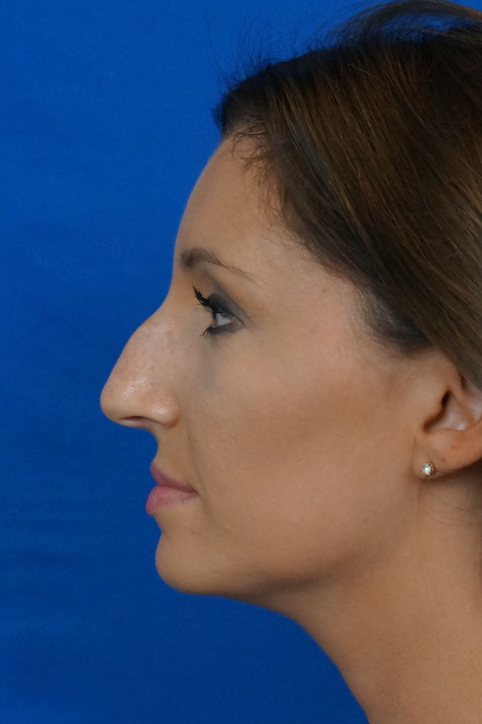 Las Vegas Nose Job Before