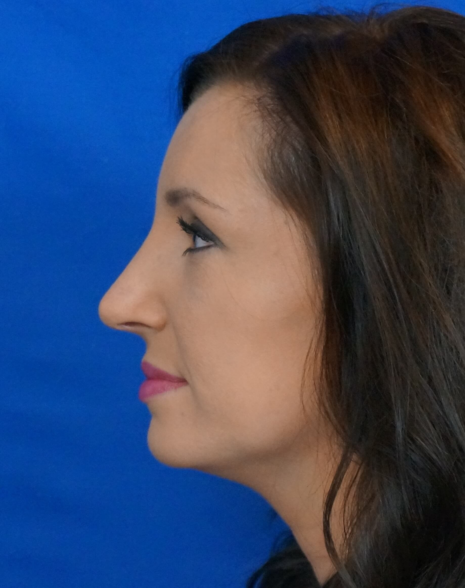 Las Vegas Nose Job After