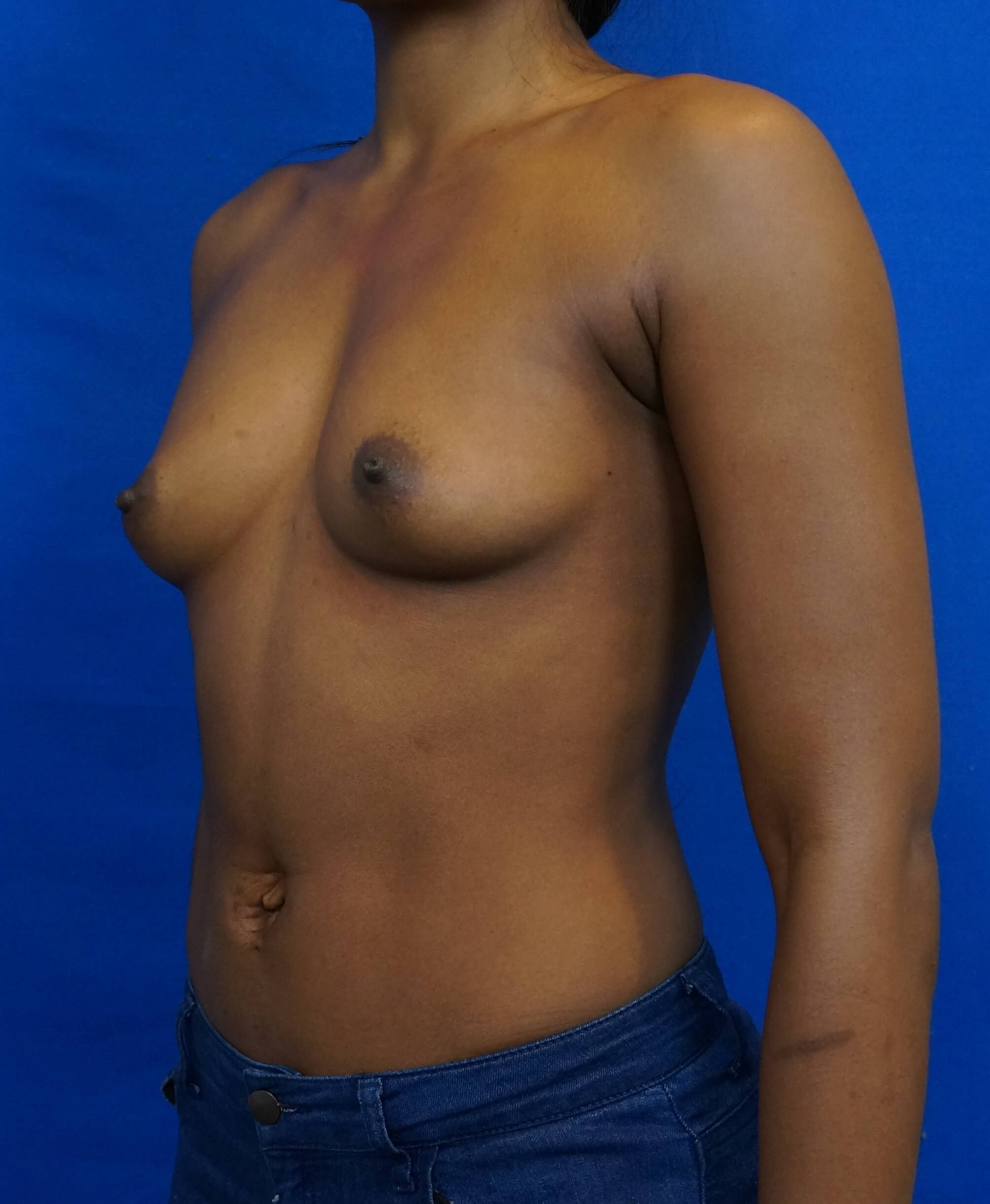Breast Implant Las Vegas Pics Before