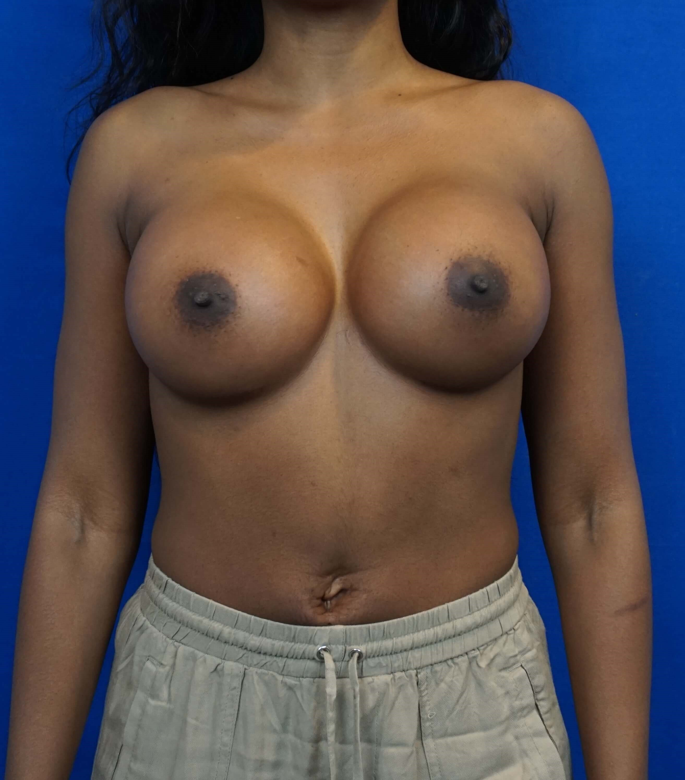 Las Vegas Breast Implant Pics After