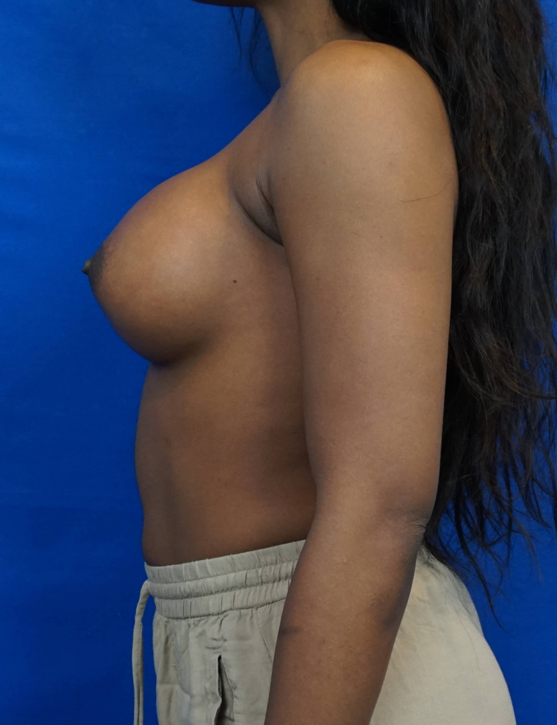 Before and After Breast Aug After