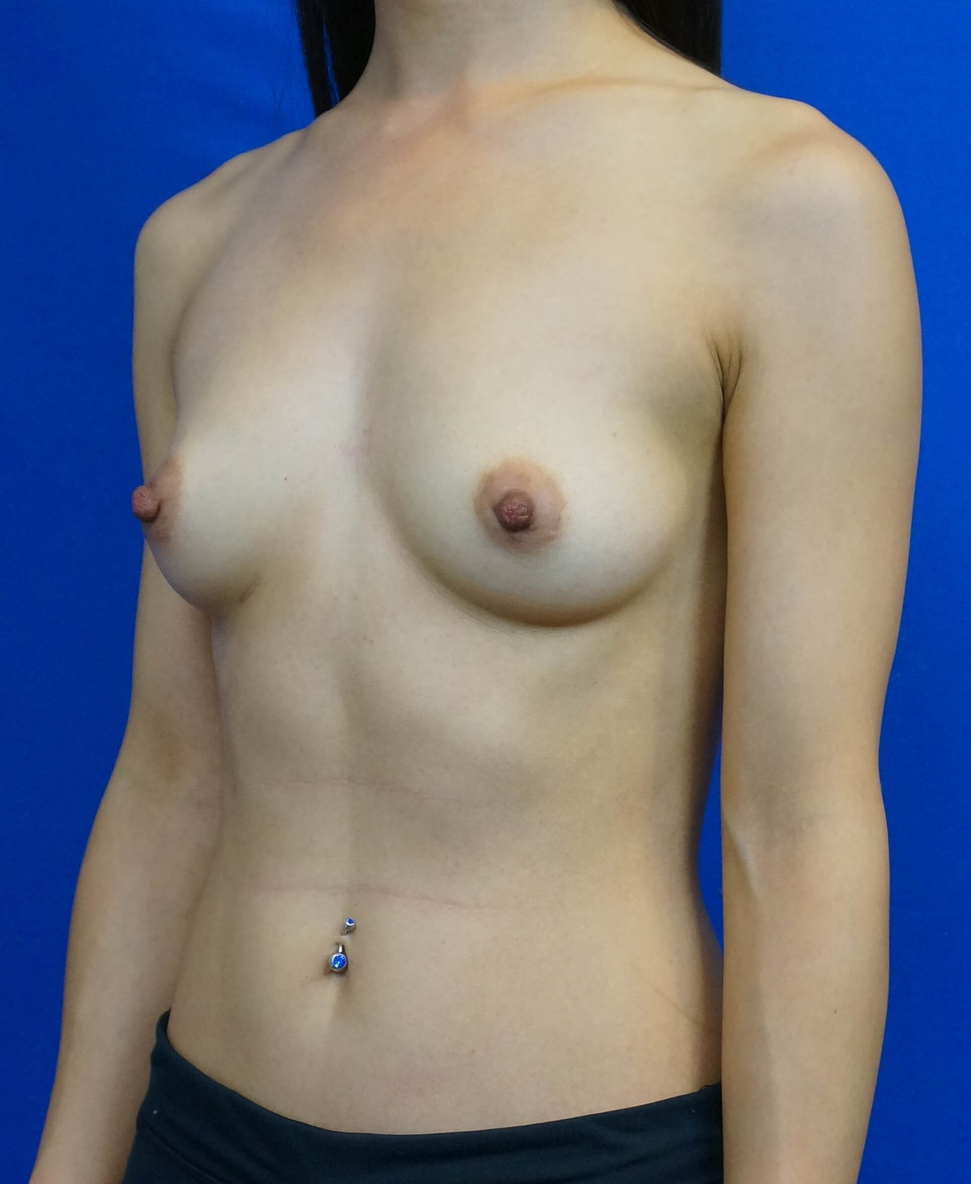 Breast Implant Las Vegas Before