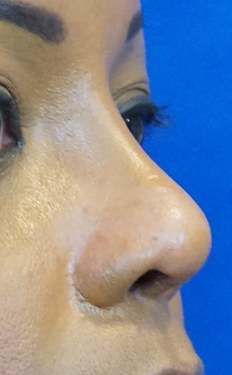 Natural African American Nose After