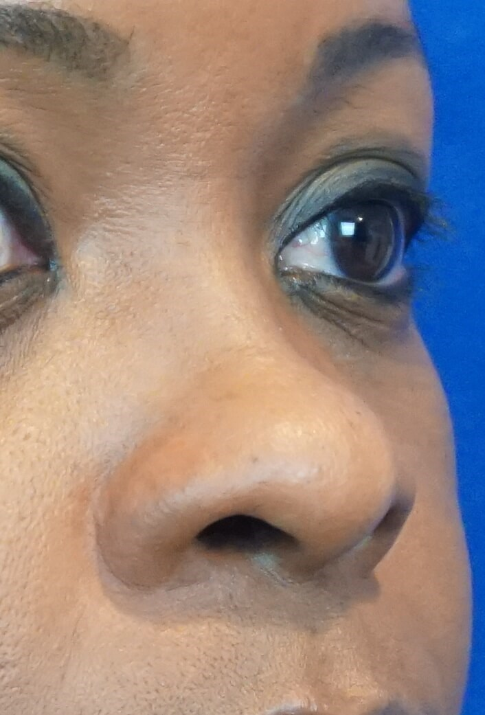 Natural African American Nose Before