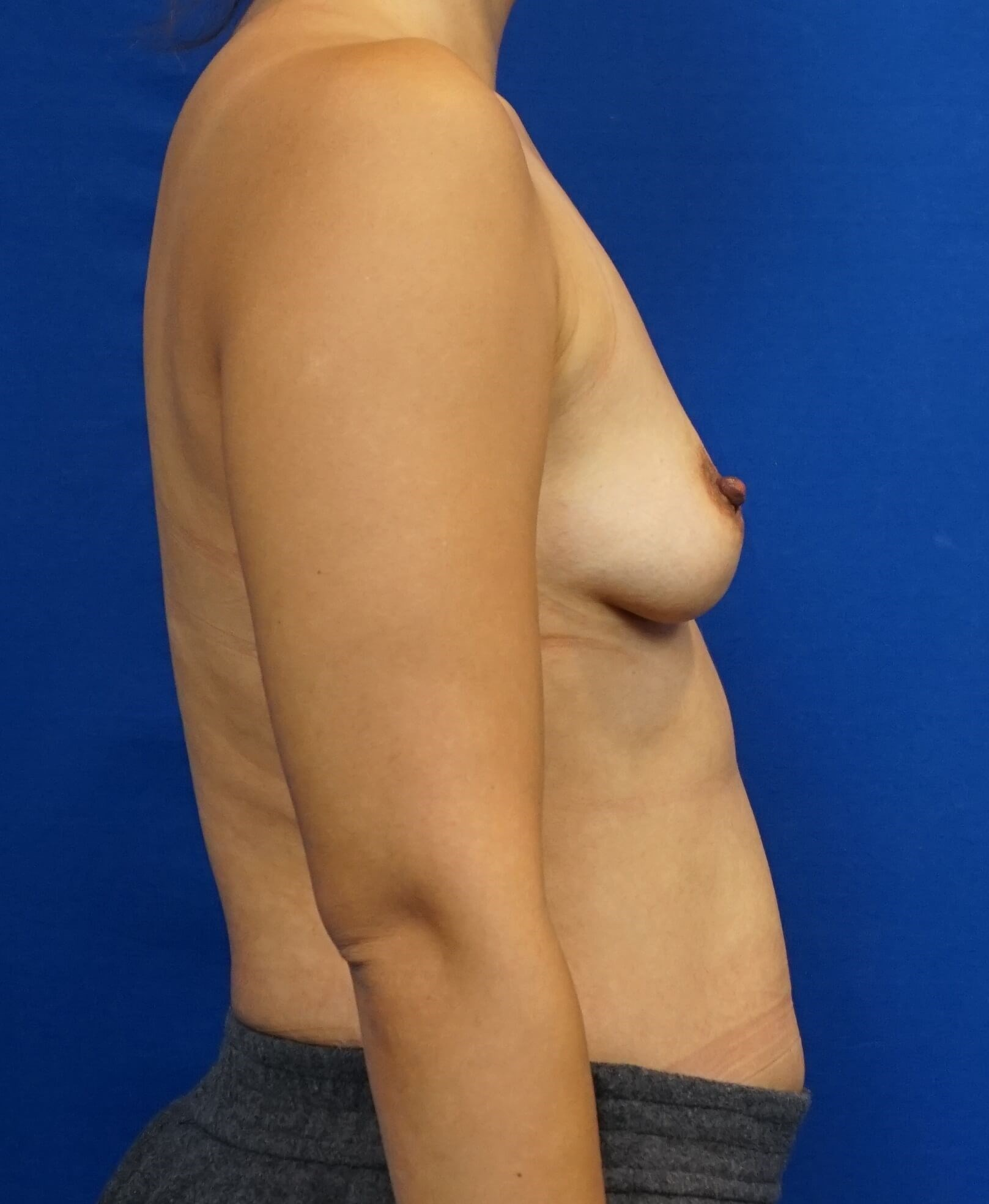 Breast Augmentation Pics Before