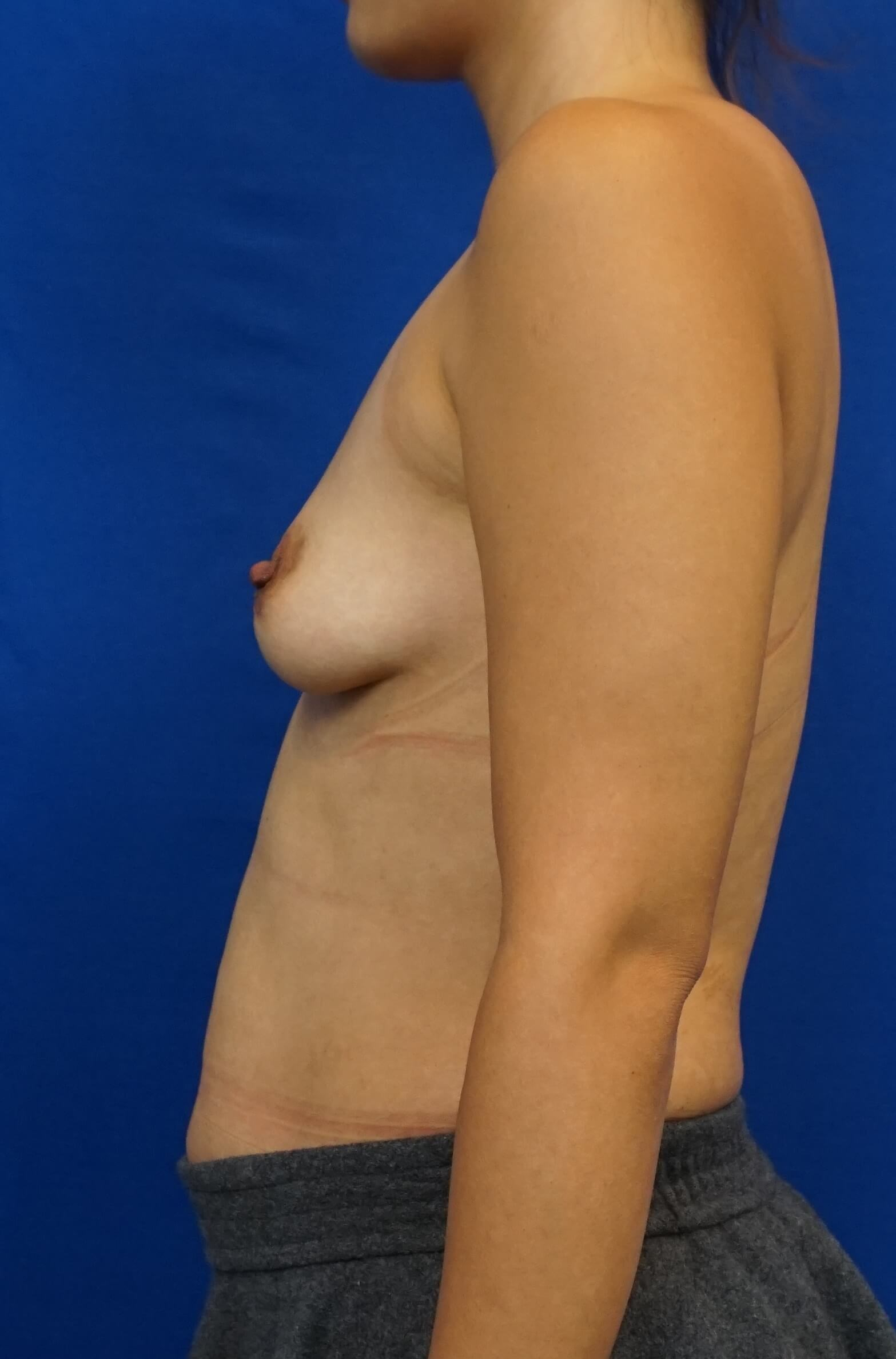 Bigger Breast Implants Before
