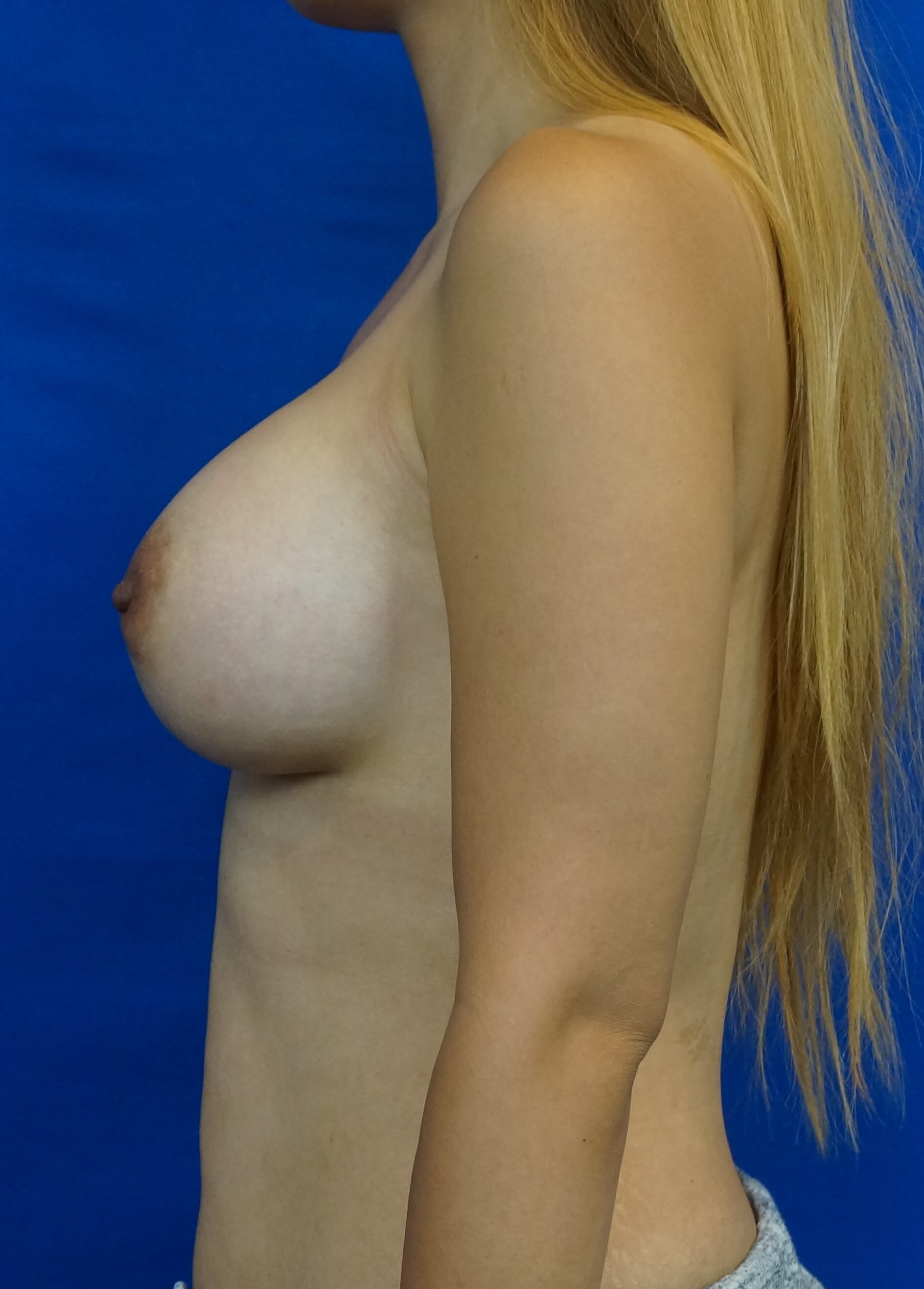 Bigger Breast Implants After