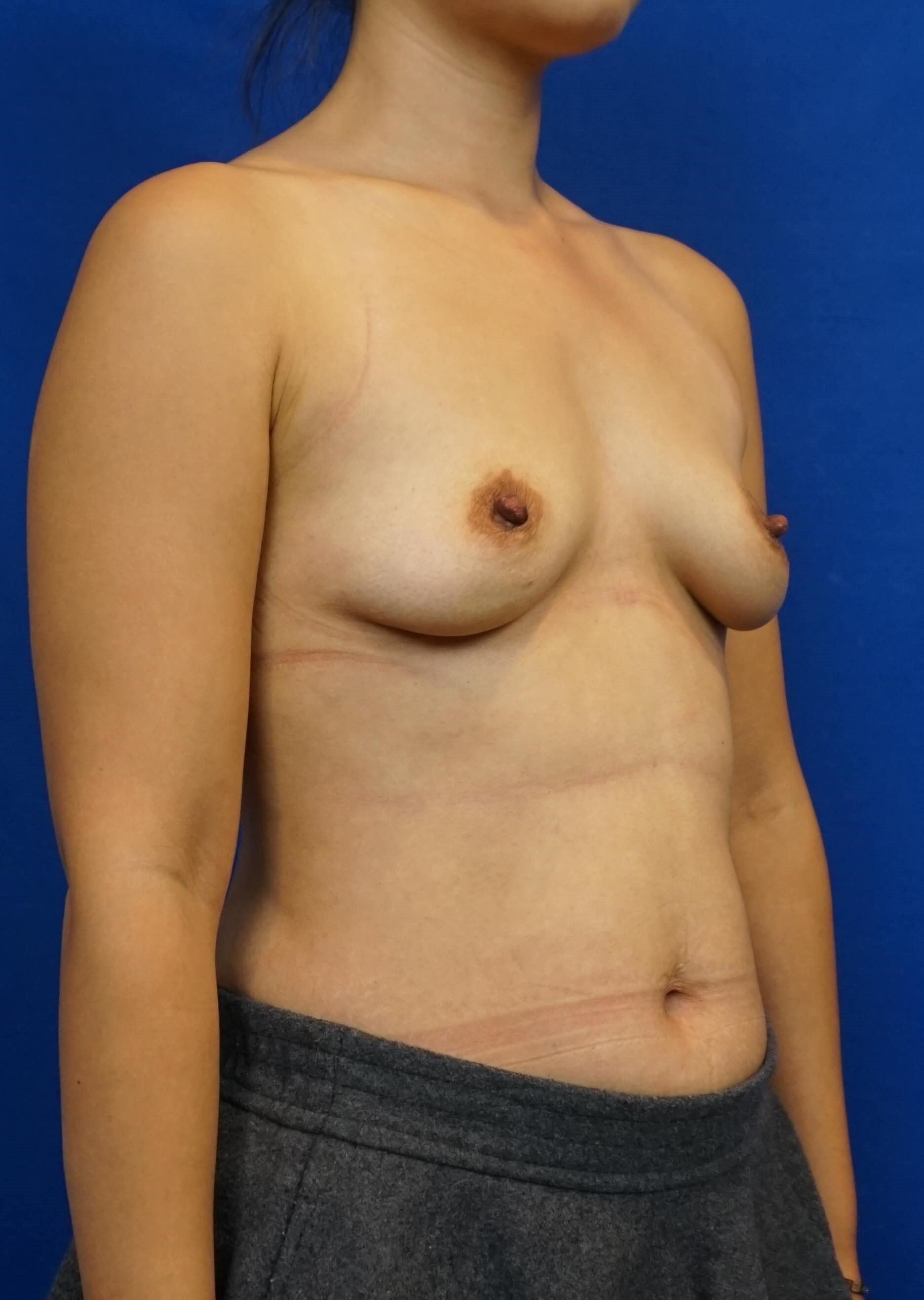 Las Vegas Breast Implant Pics Before
