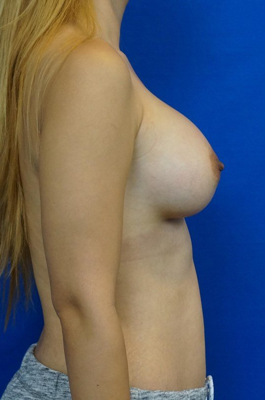 Breast Augmentation Pics After