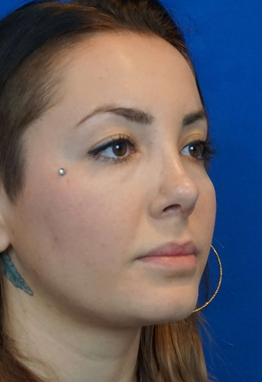 Las Vegas Rhinoplasty Surgeon After