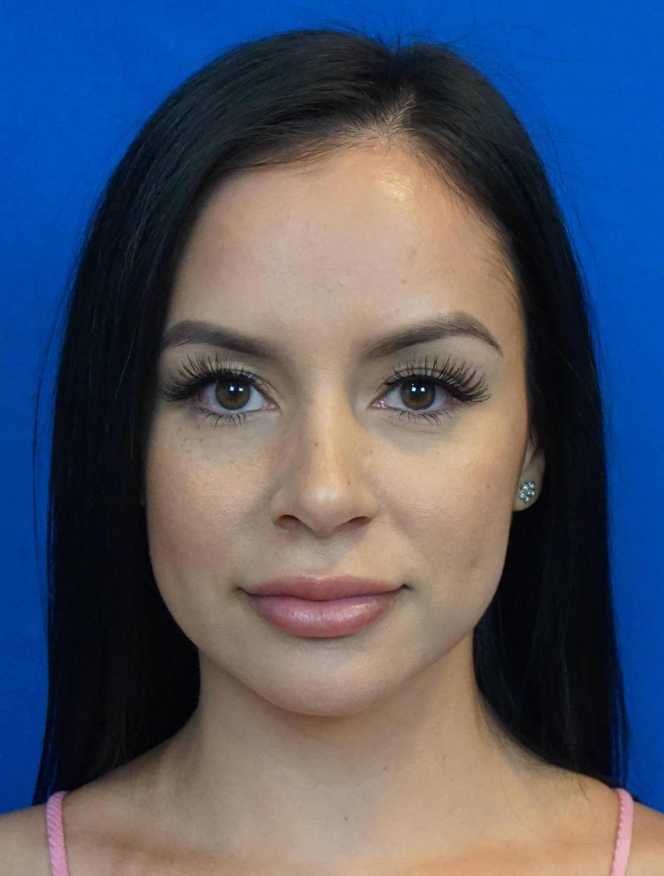 Rhinoplasty Surgeon Las Vegas After
