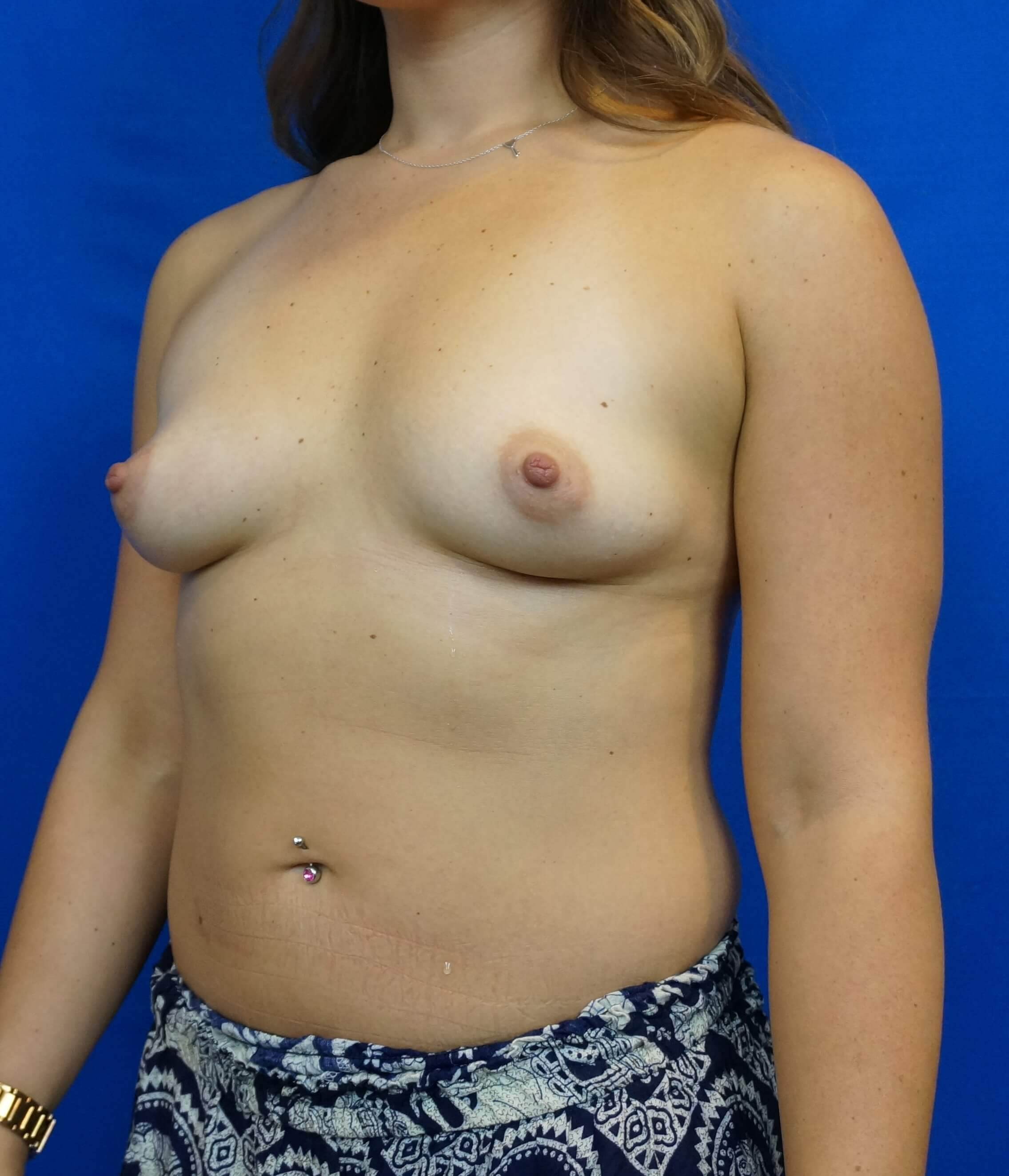 Breast Augmentation Photos LV Before Breast Augmentation