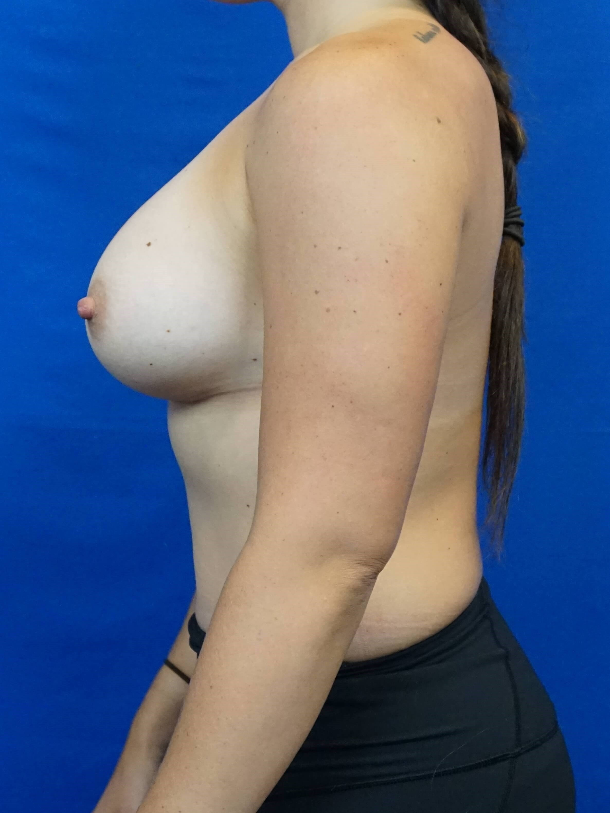 Las Vegas Breast Surgeon Pics Breast Implant After