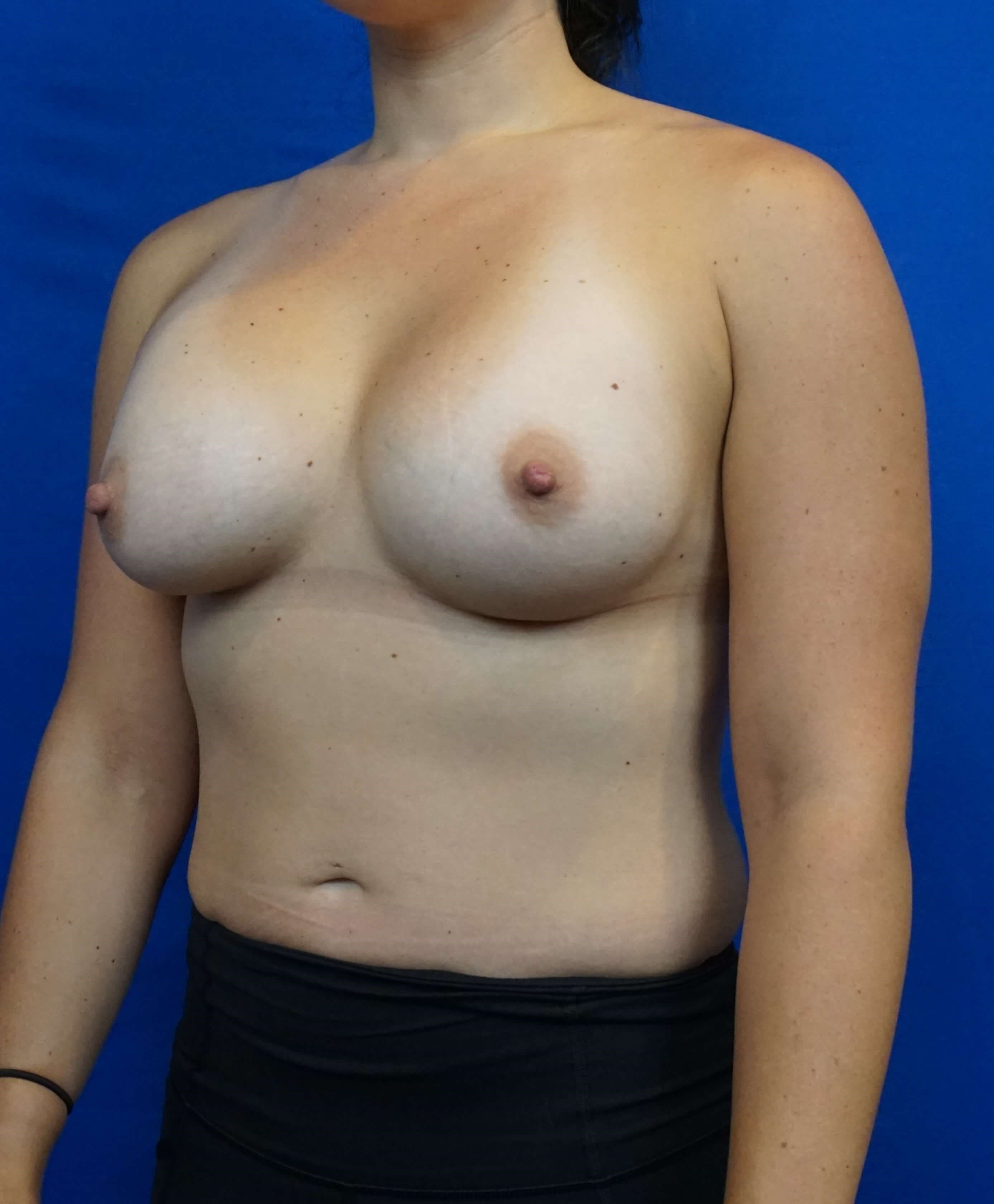 Breast Augmentation Photos LV After Breast Augmentation