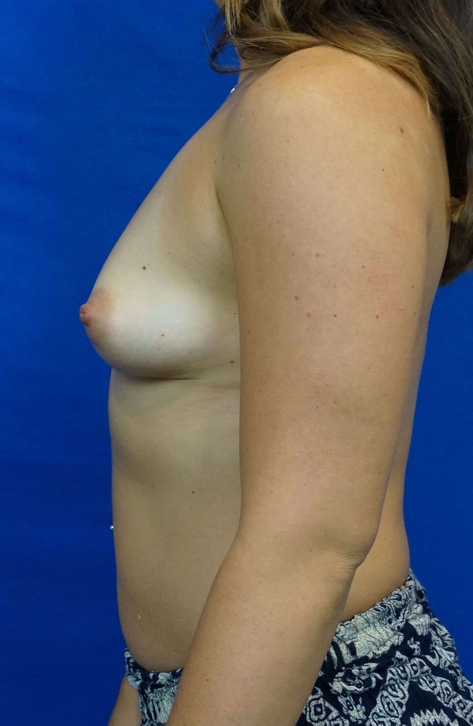 Las Vegas Breast Surgeon Pics Breast Implant Before