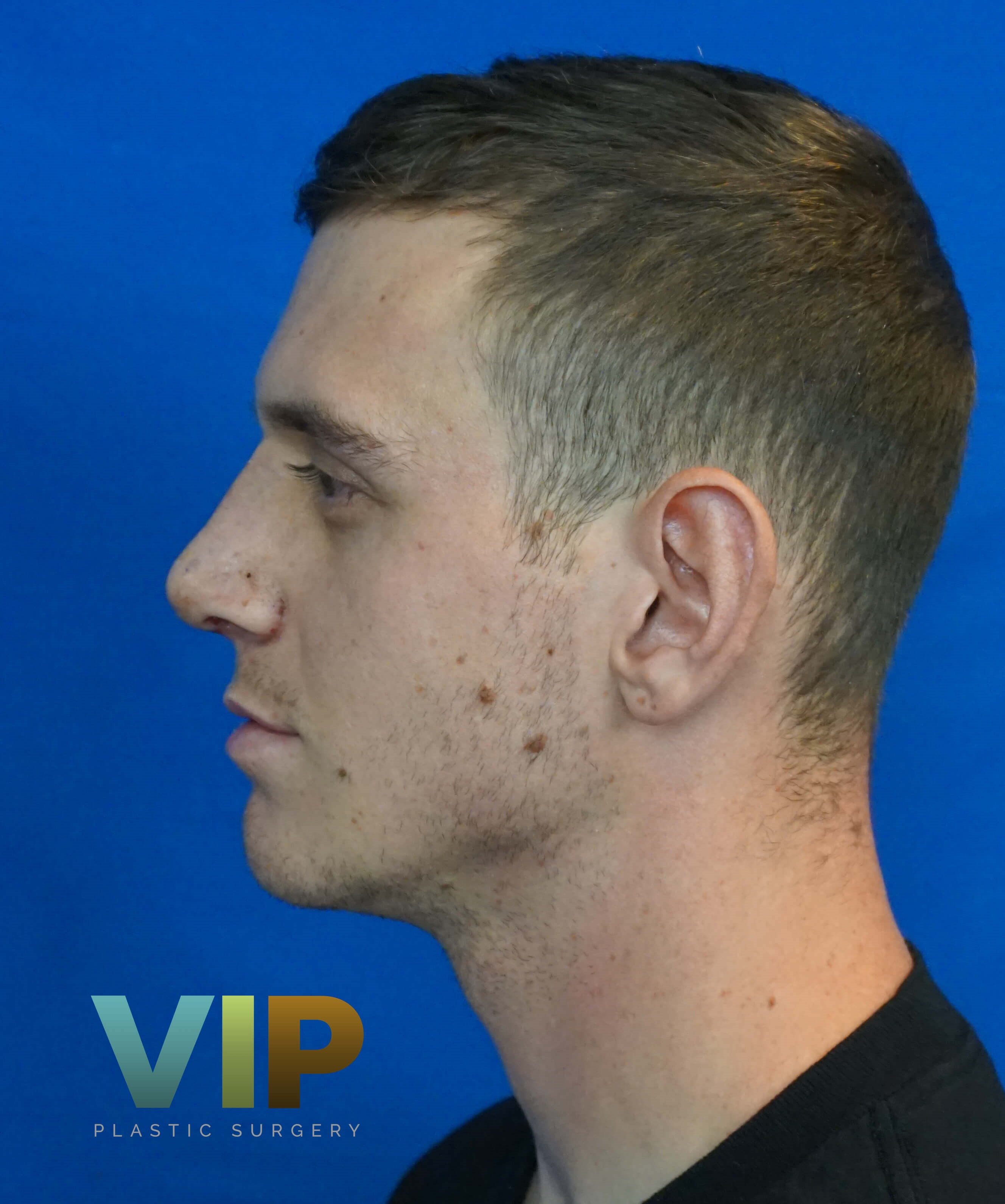 Male Nosejob Las Vegas Rhinoplasty After Picture