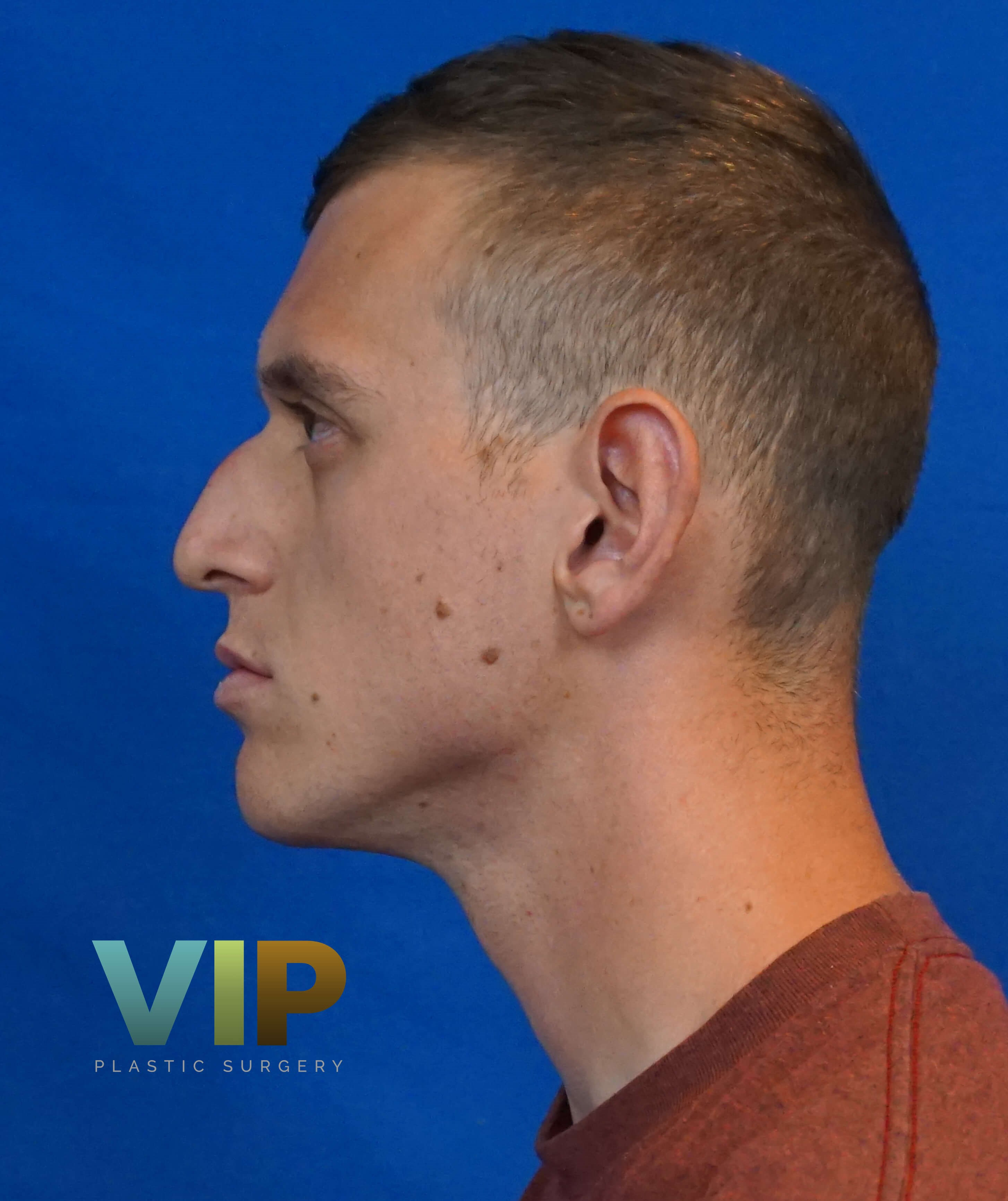 Male Nosejob Las Vegas Rhinoplasty Surgery Before Pic