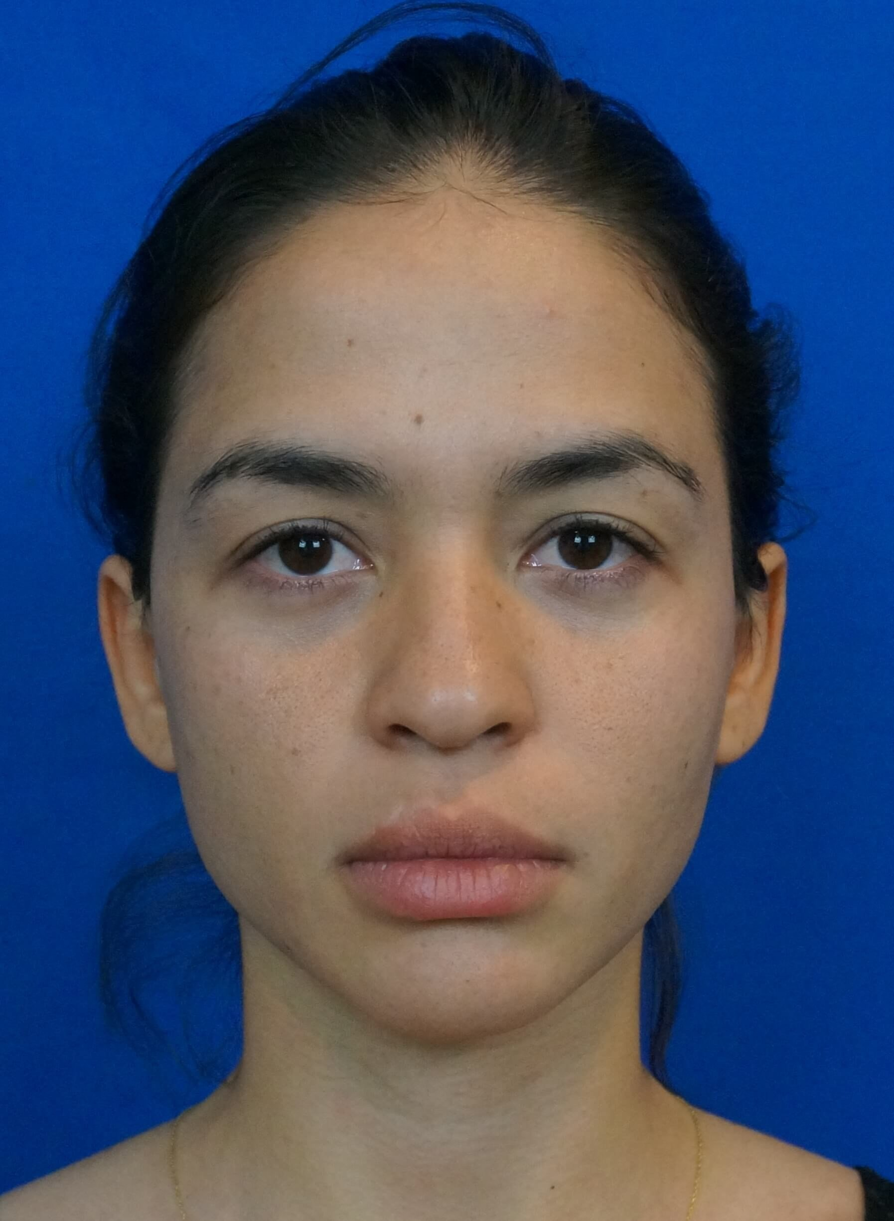 Nosejob Las Vegas Before Brow Lift and Nosejob