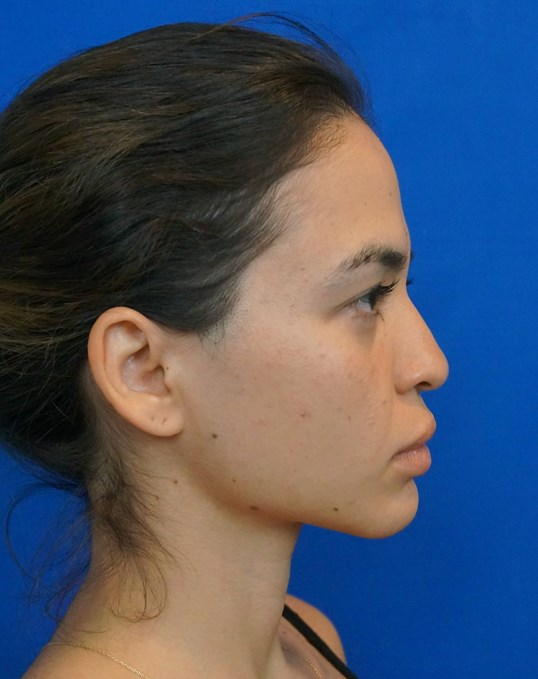 Rhinoplasty Photos Las Vegas Before Nose Surgery