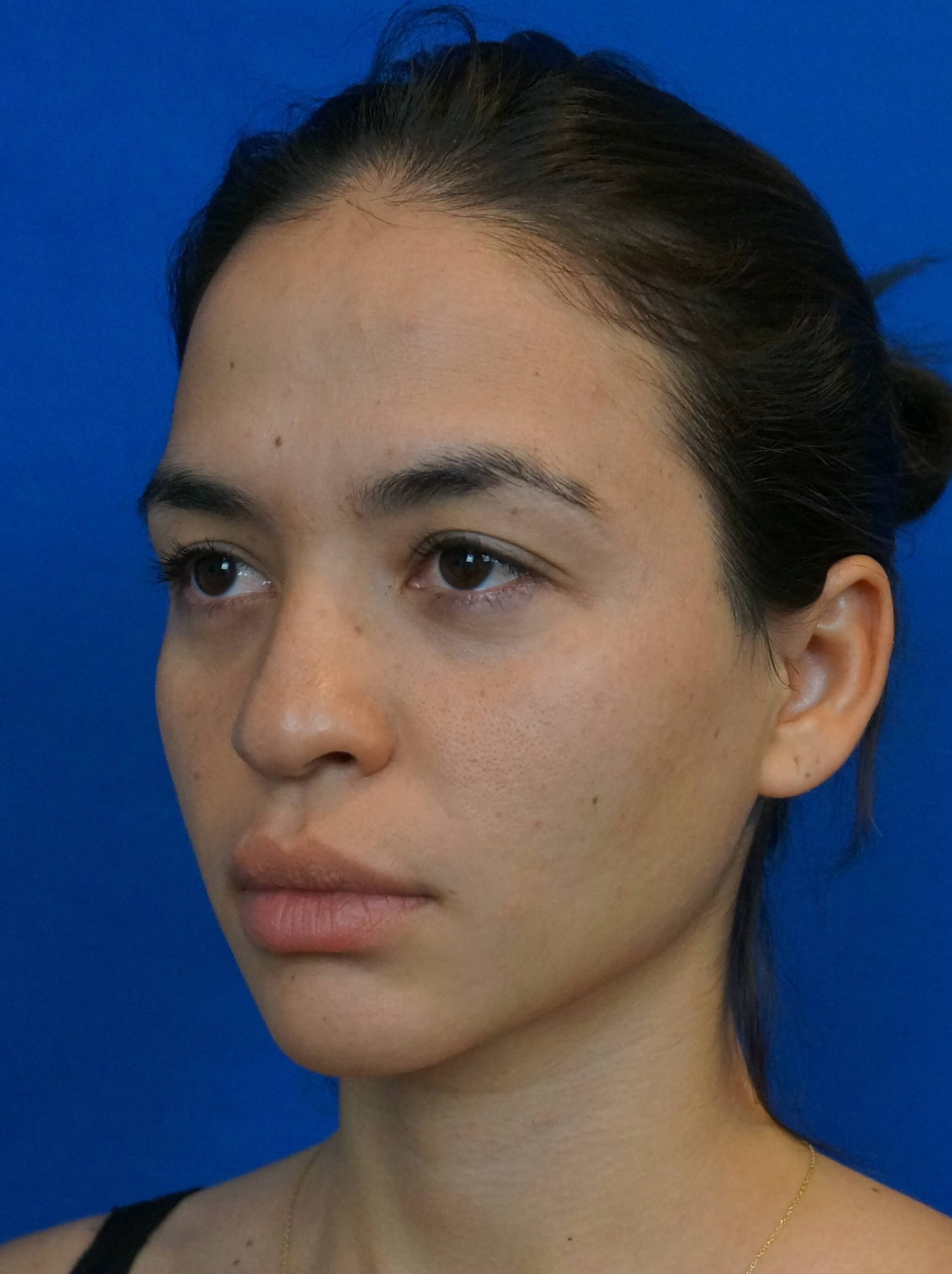 Rhinoplasty Surgeon Las Vegas Rhinoplasty Before Picture
