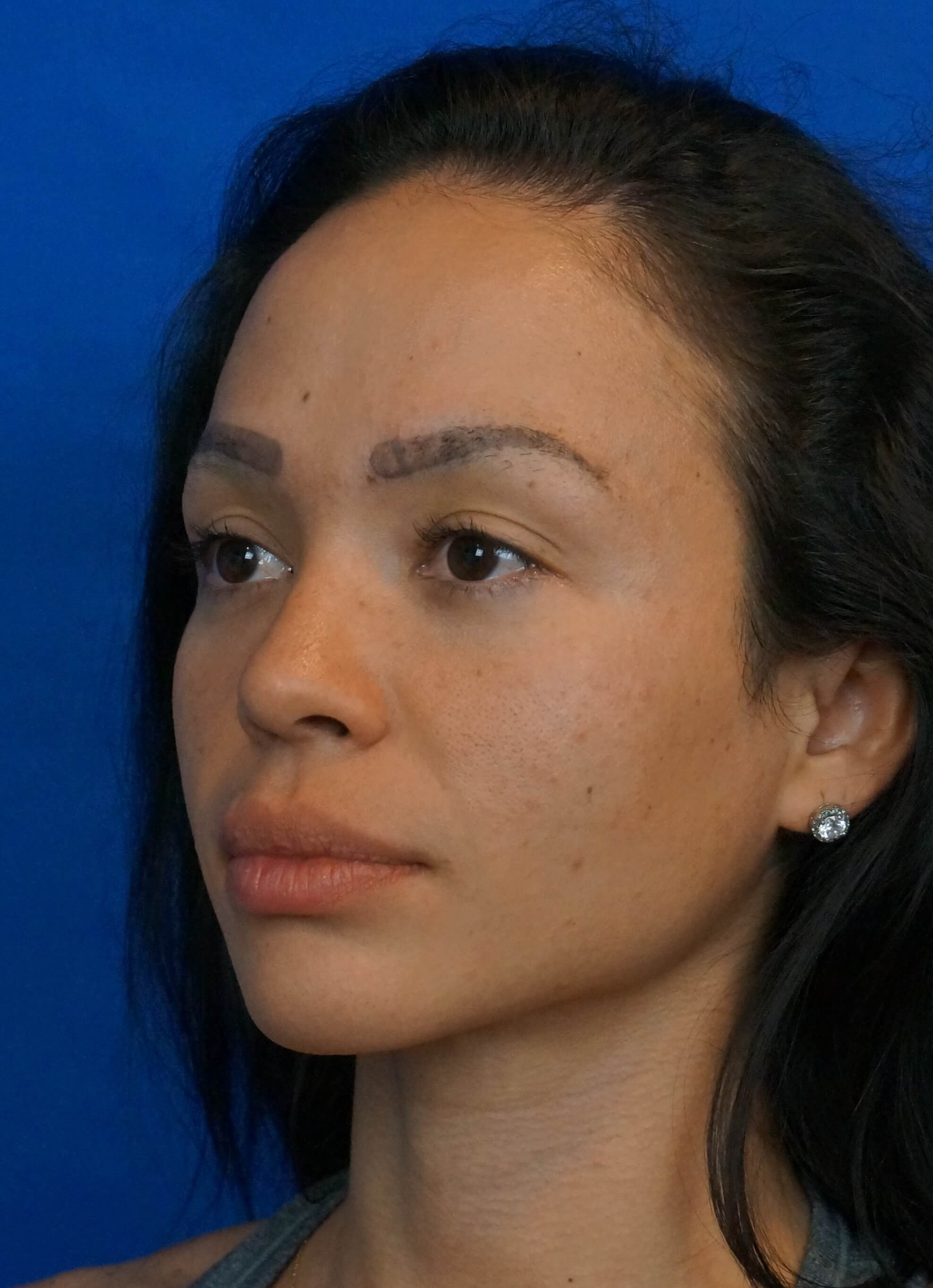 Rhinoplasty Surgeon Las Vegas Rhinoplasty After Picture