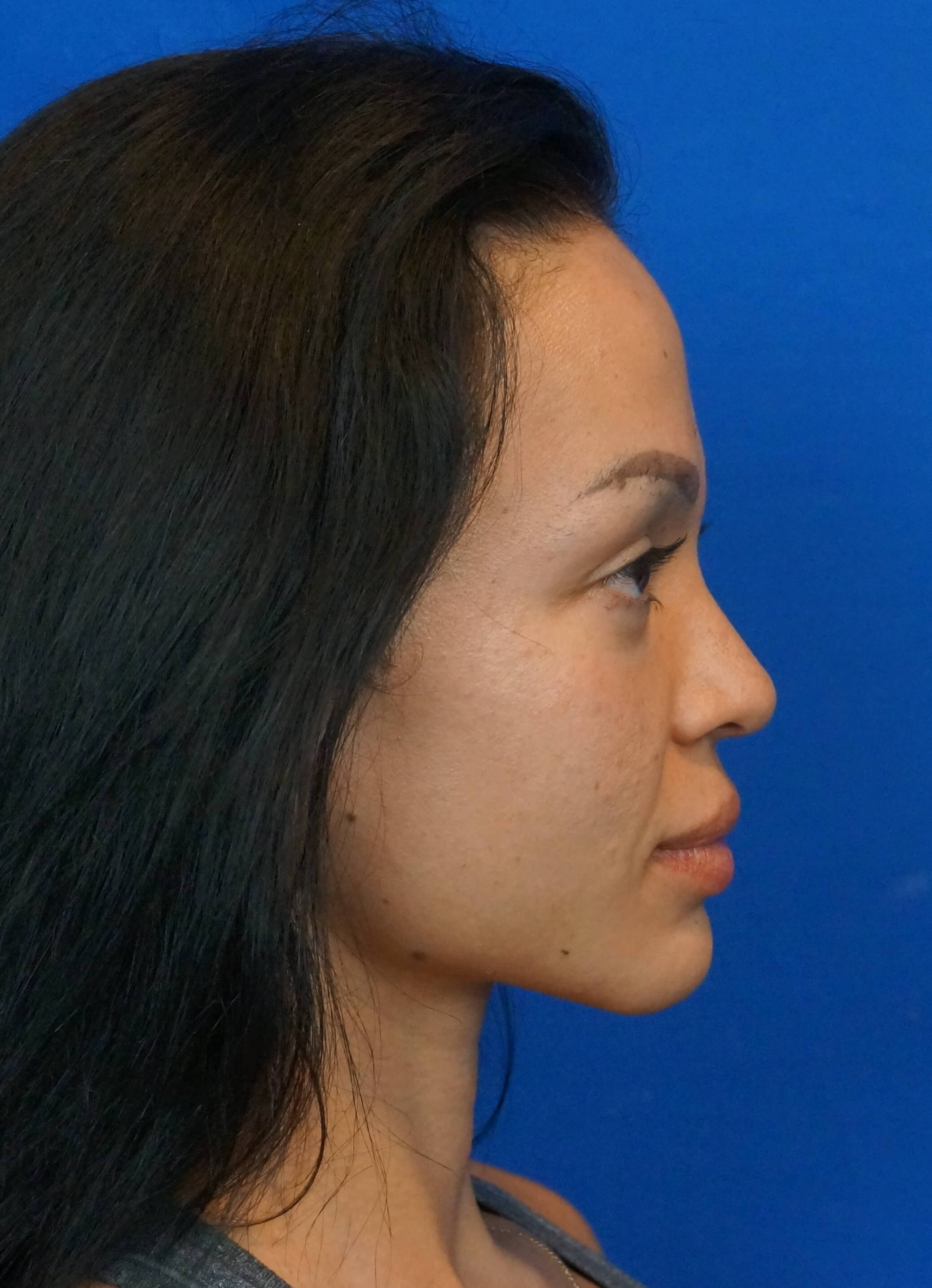 Rhinoplasty Photos Las Vegas After Nose Surgery