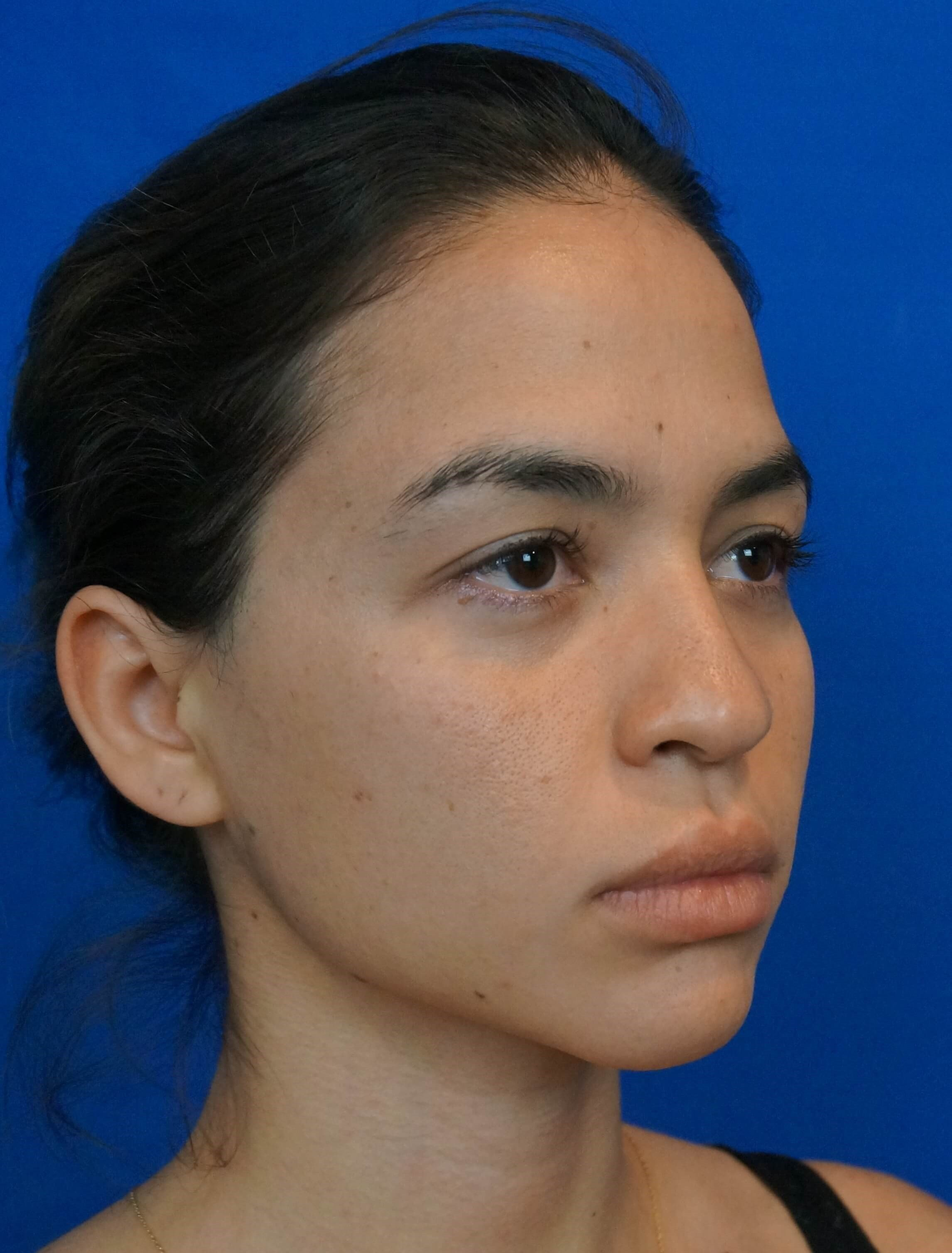 Las Vegas Rhinoplasty Surgeon Before Rhino Photo