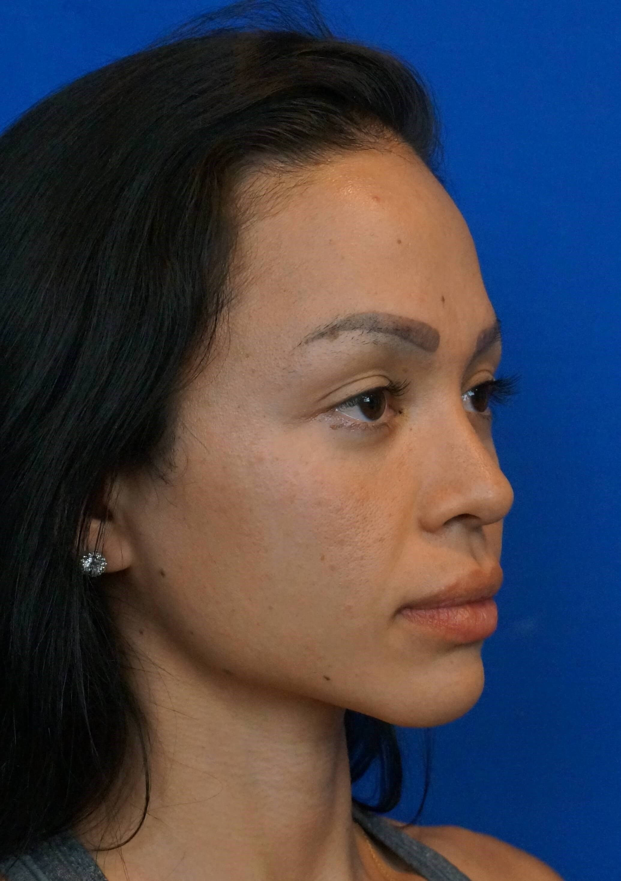 Las Vegas Rhinoplasty Surgeon After Rhino Photo