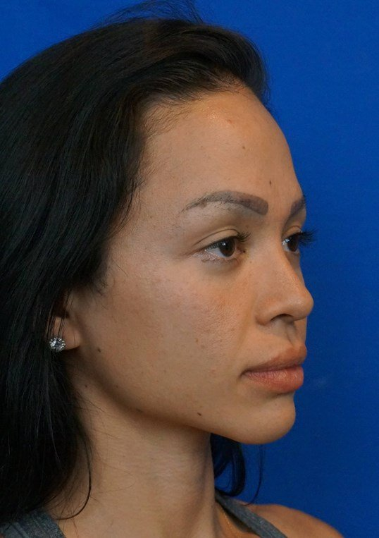 Before And After Rhinoplasty Brow Lift Ethnic Rhinoplasty Photos
