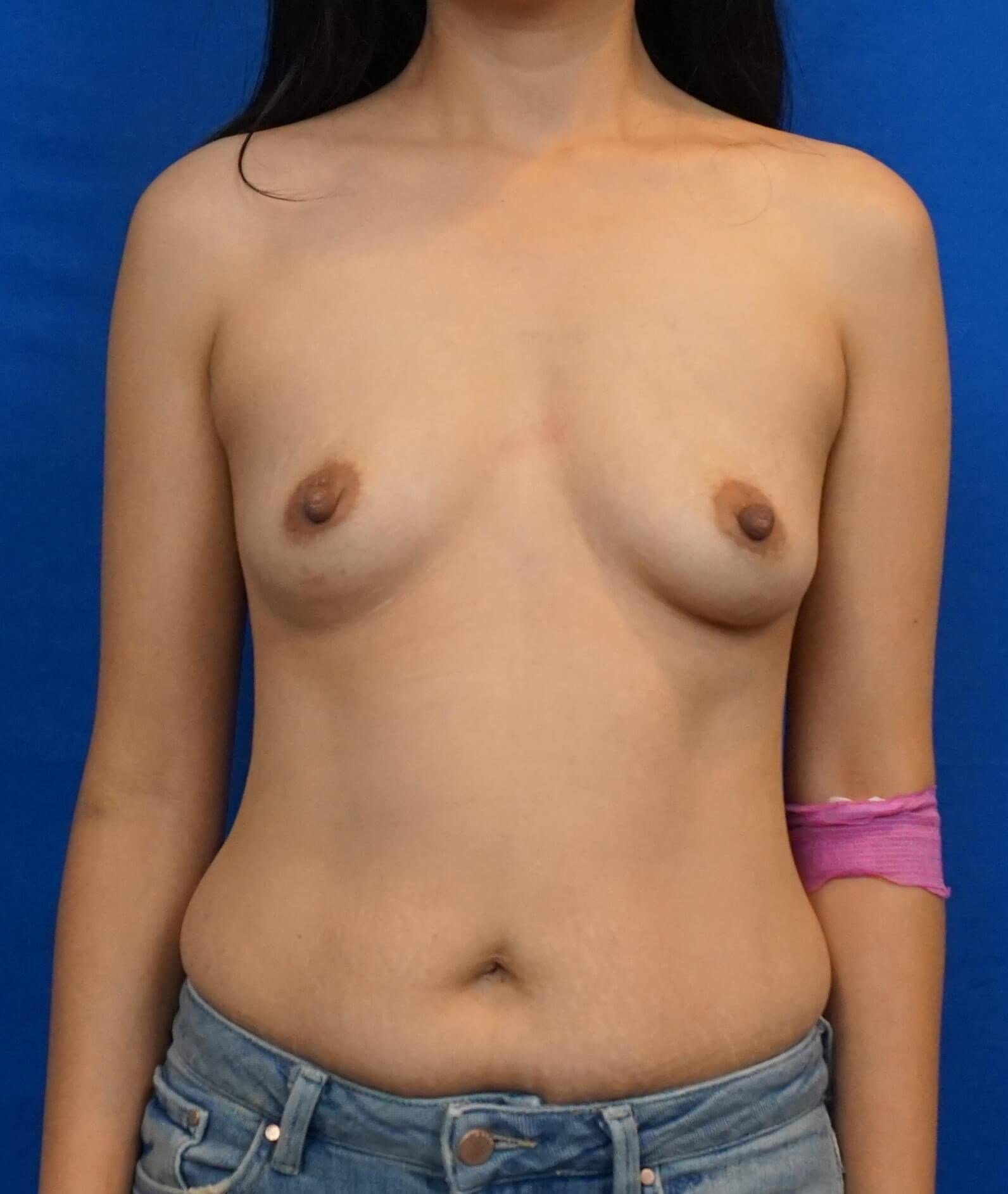 Asian Breast Augmentation Before Breast Implants