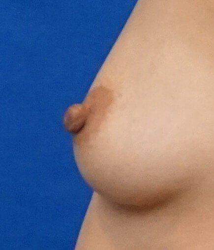 Nipple Reduction Photos Before Nipple Reduction