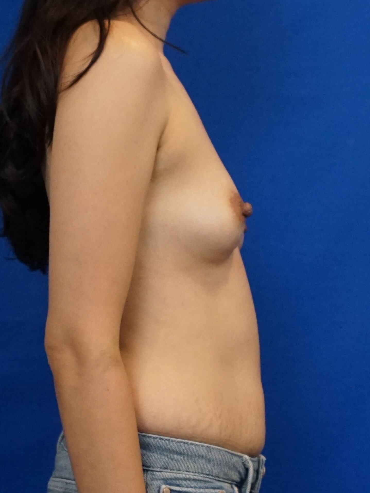 Breast Implant Las Vegas Before Breast Implant Photo