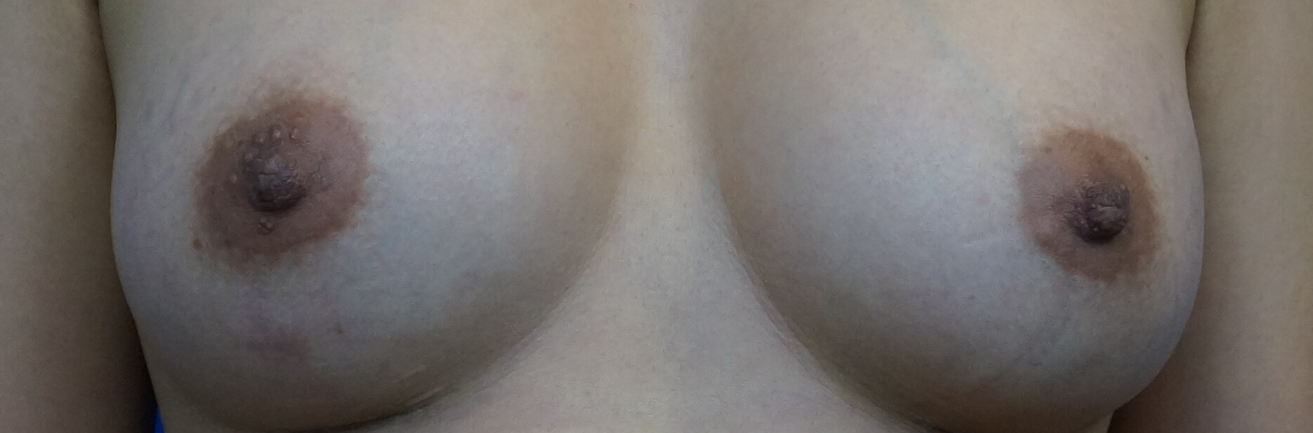 Nipple Reduction Surgery After