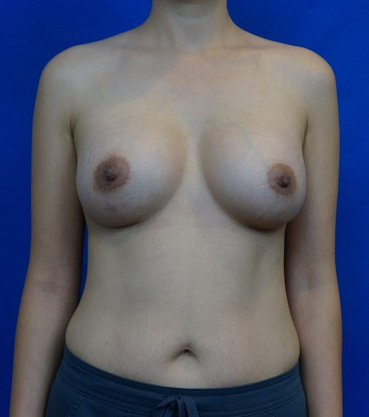 Asian Breast Augmentation After Breast Implants
