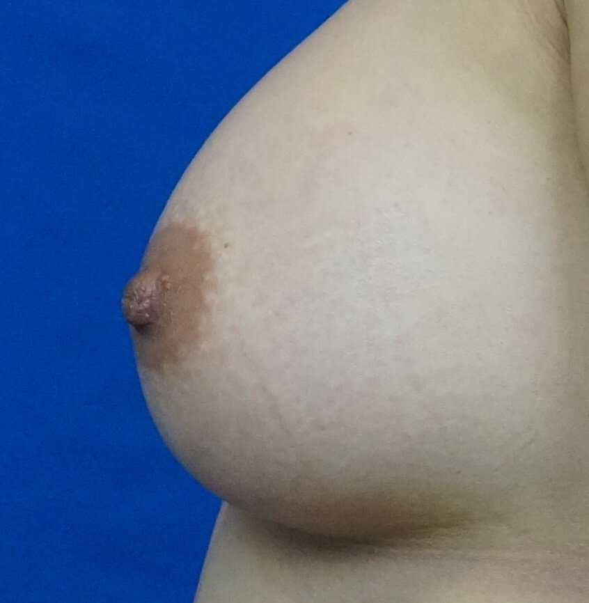 Nipple Reduction Photos After Nipple Reduction