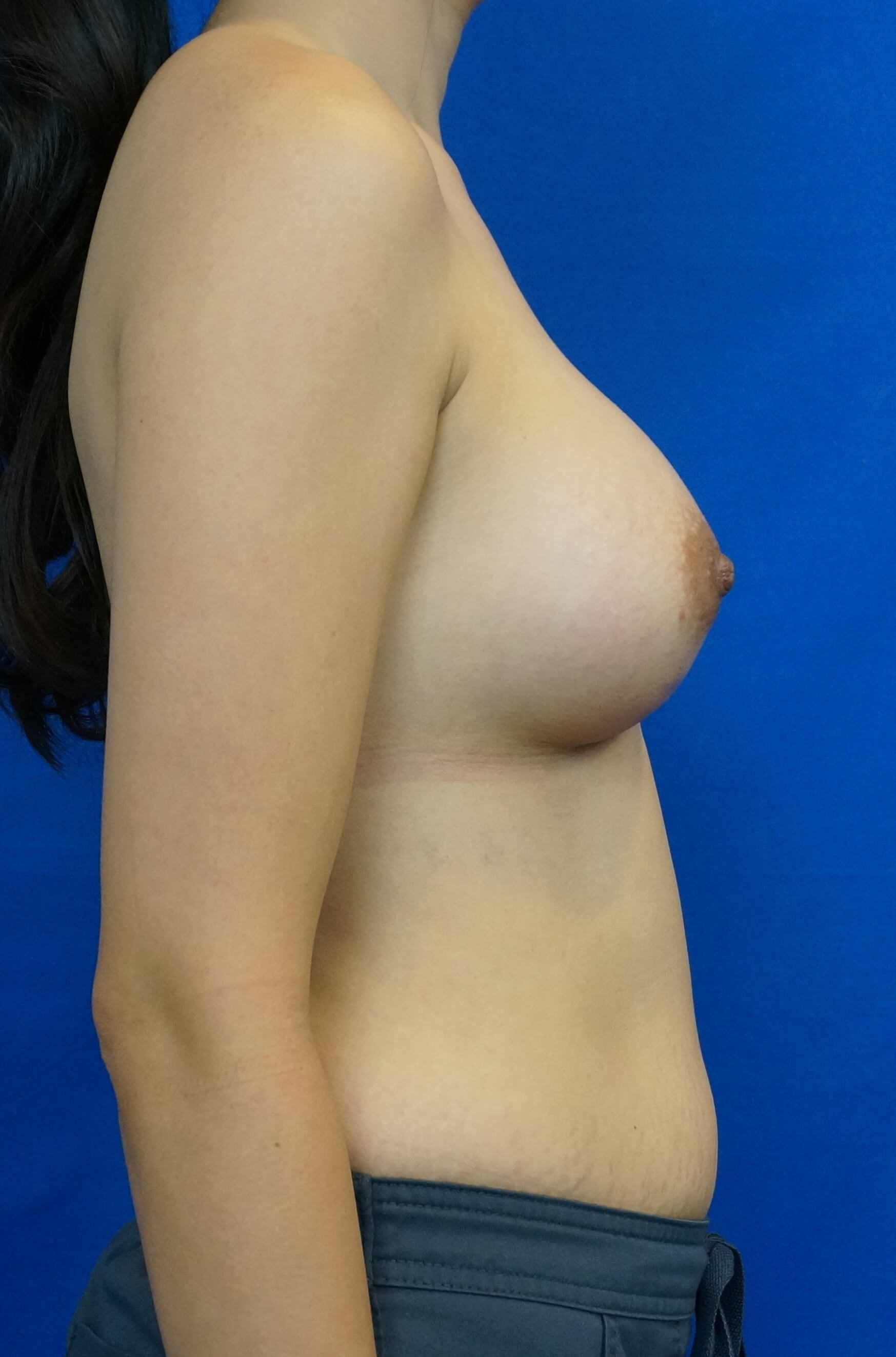 Breast Implant Las Vegas After Breast implant Photo