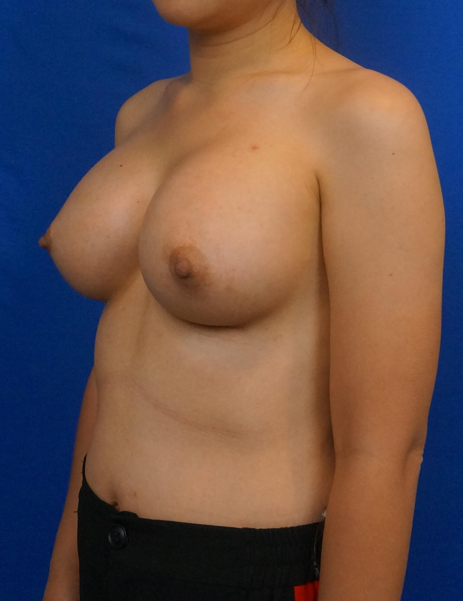 Breast Augmentation USA After