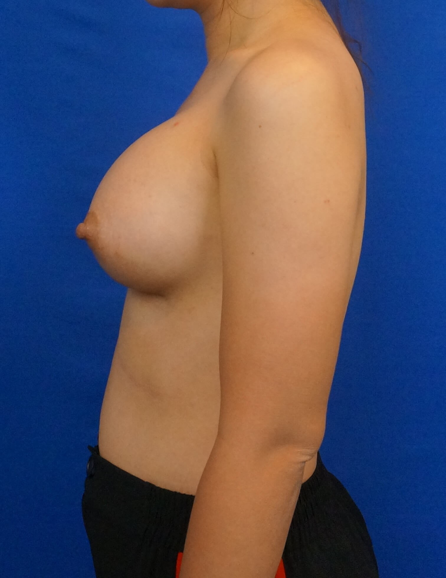Asian Breast Augmentation After