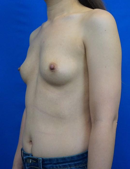 Breast Augmentation USA Before