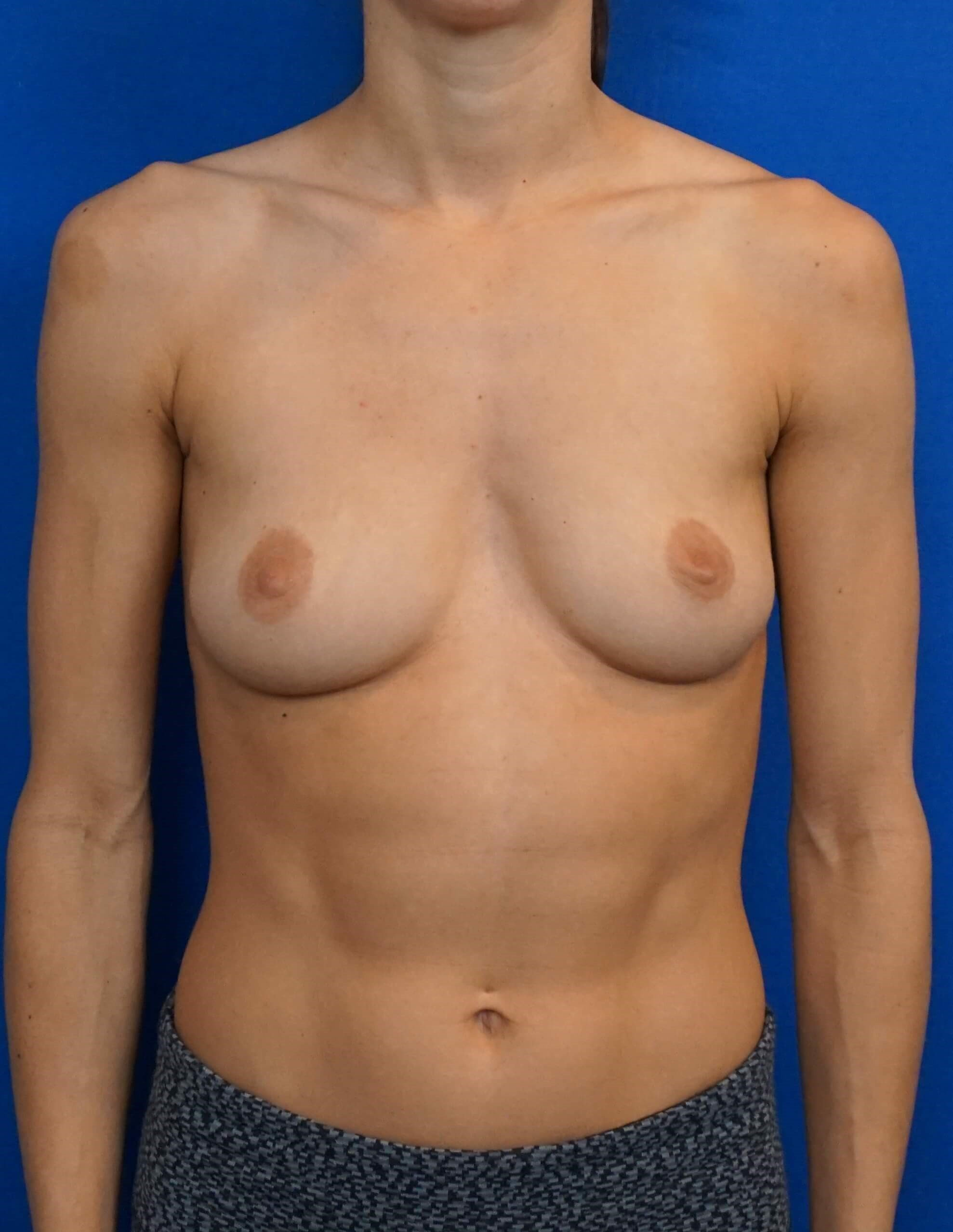 Breast Augmentation Las Vegas Before Breast Las Vegas