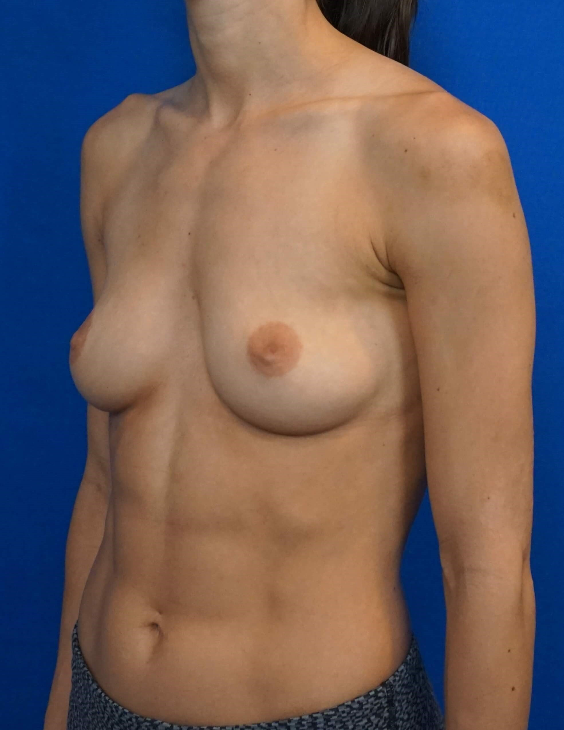 Breast Implants Surgery Pics Before