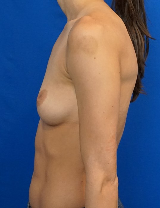 Breast Augmentation DocVegas Before