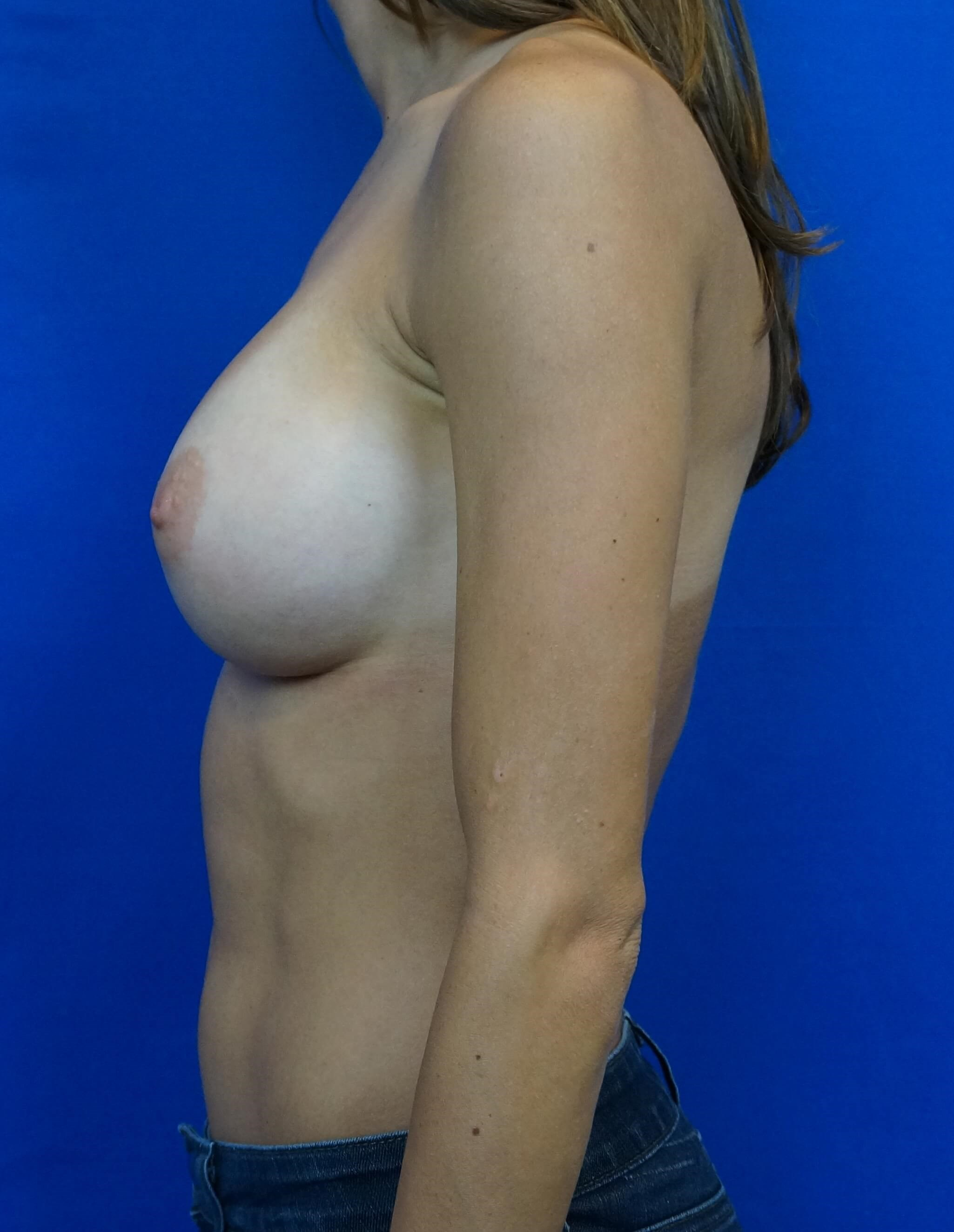 Breast Augmentation DocVegas After