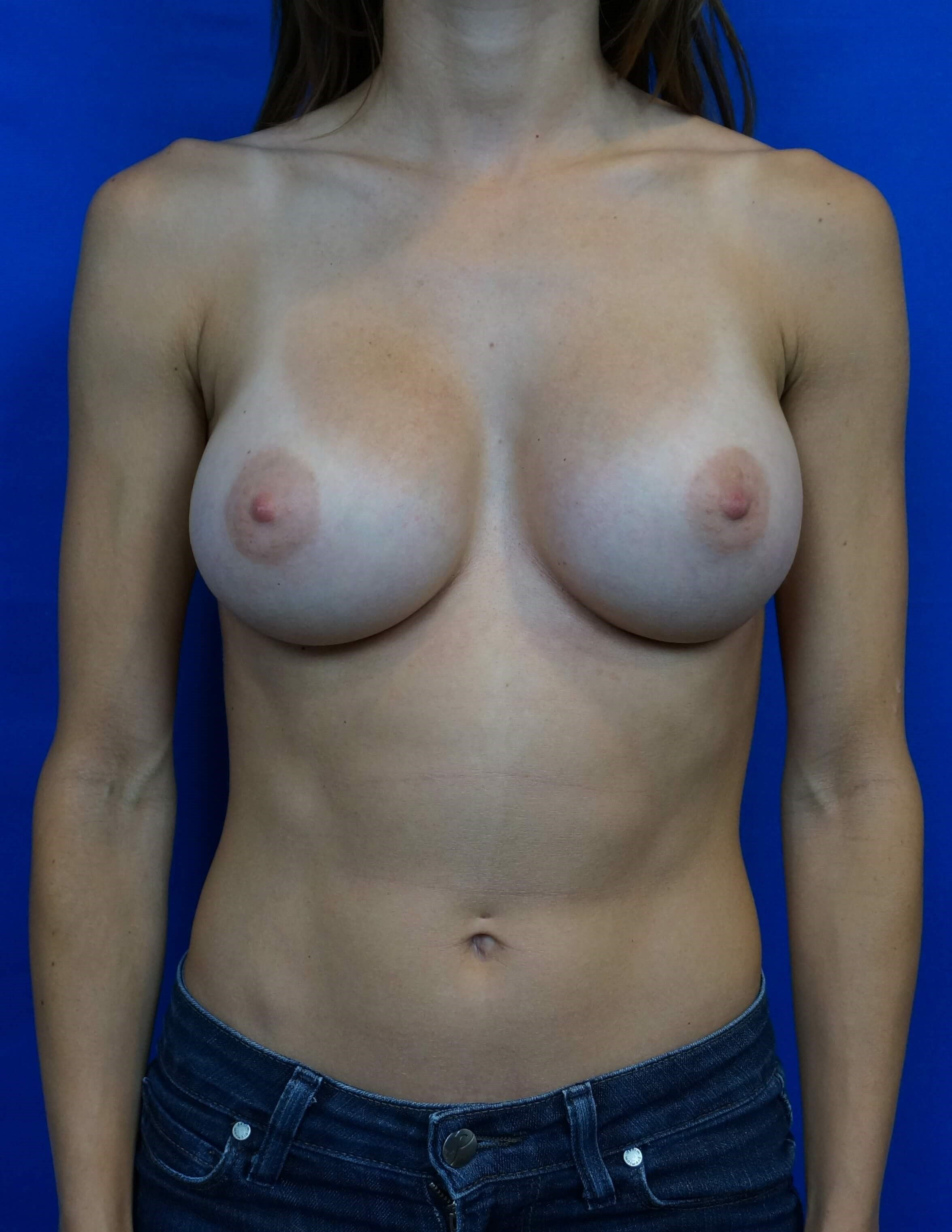 Breast Augmentation Las Vegas After Las Vegas Breast IMplant