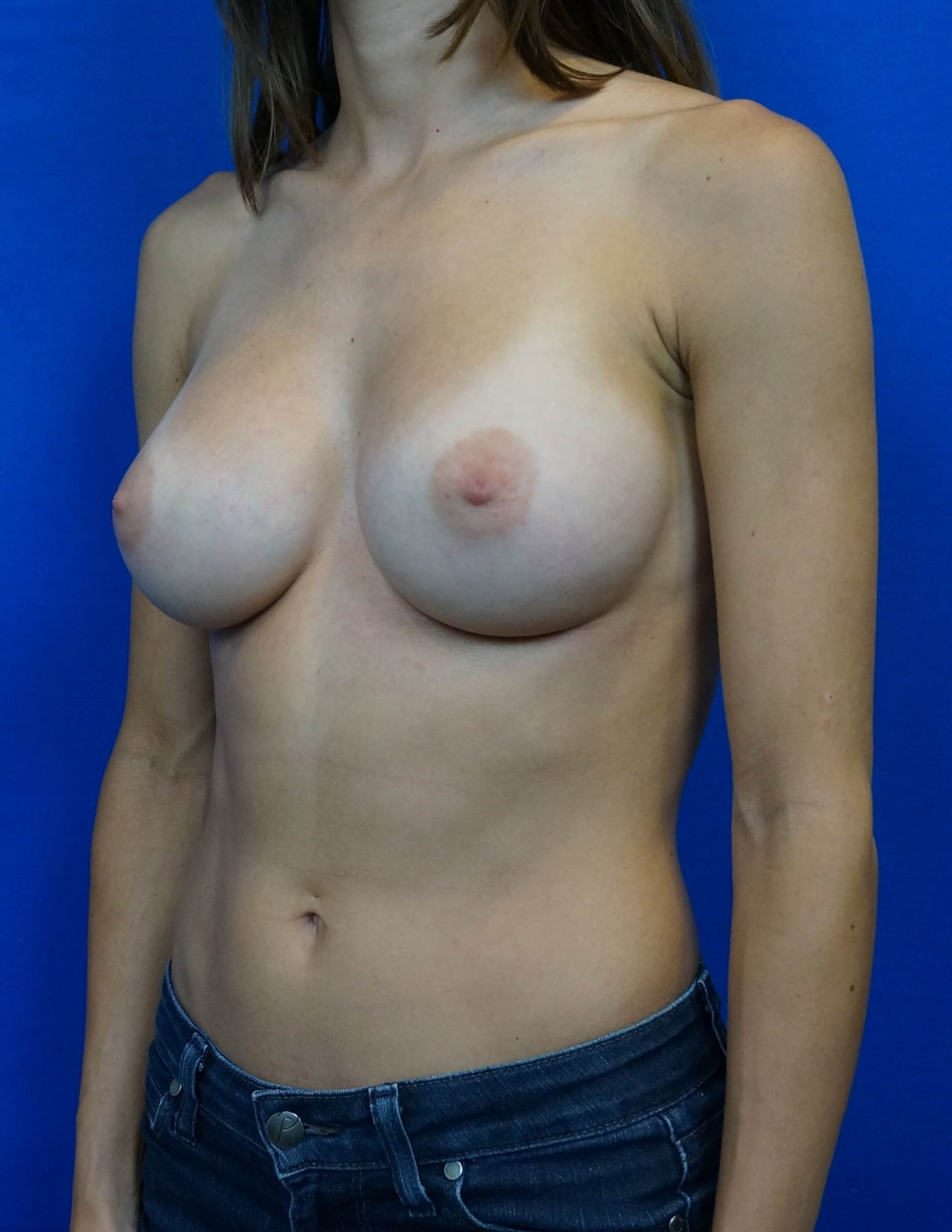 Breast Implants Surgery Pics After