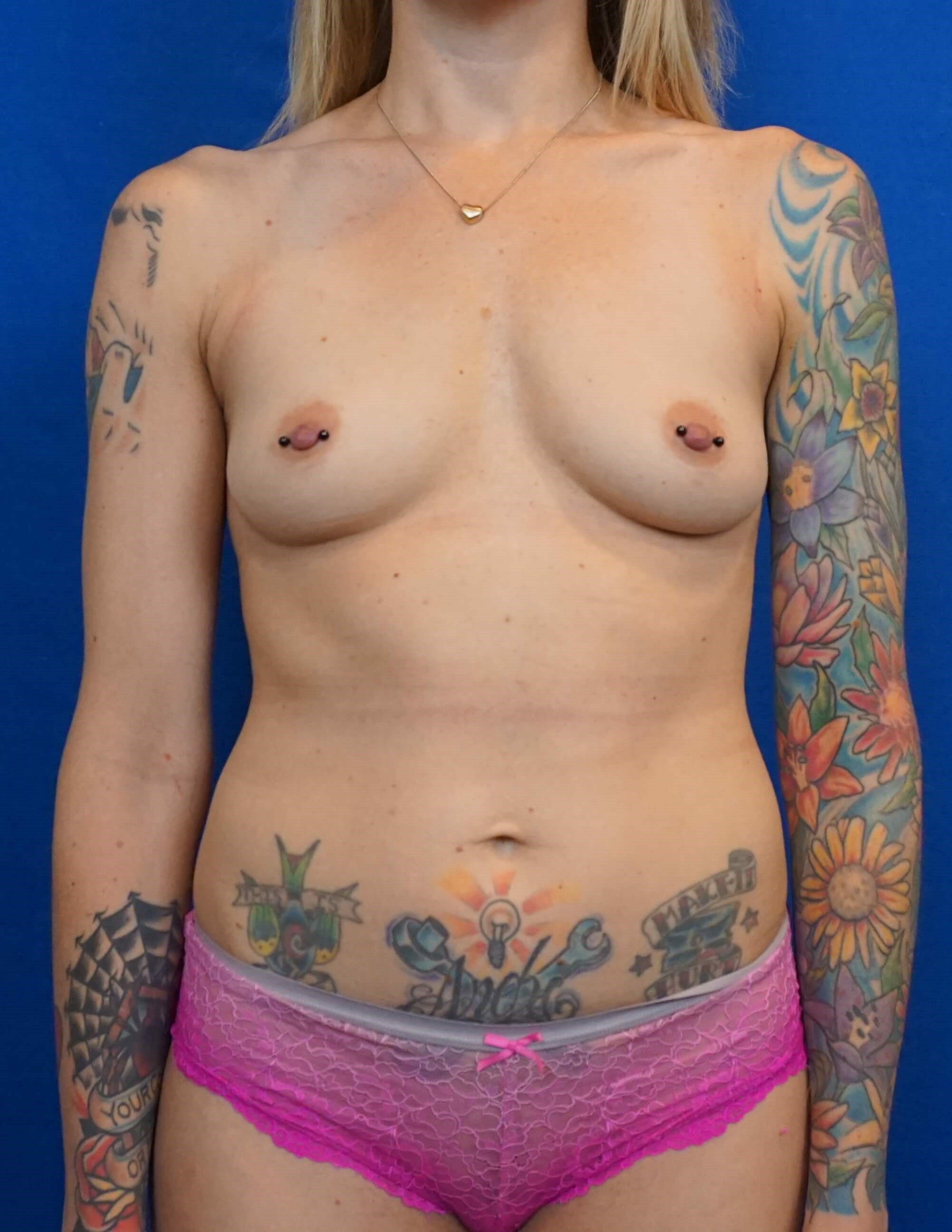Breast Augmentation Las Vegas Before Breast Implants