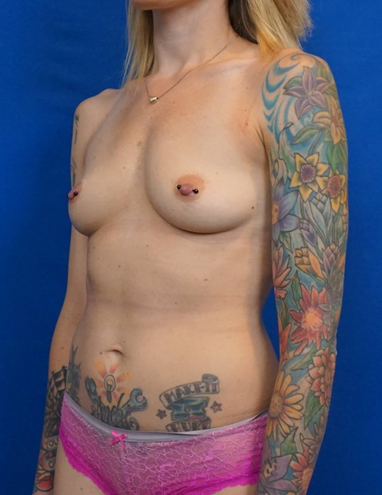 Breast Augmentation Las Vegas Before Implants