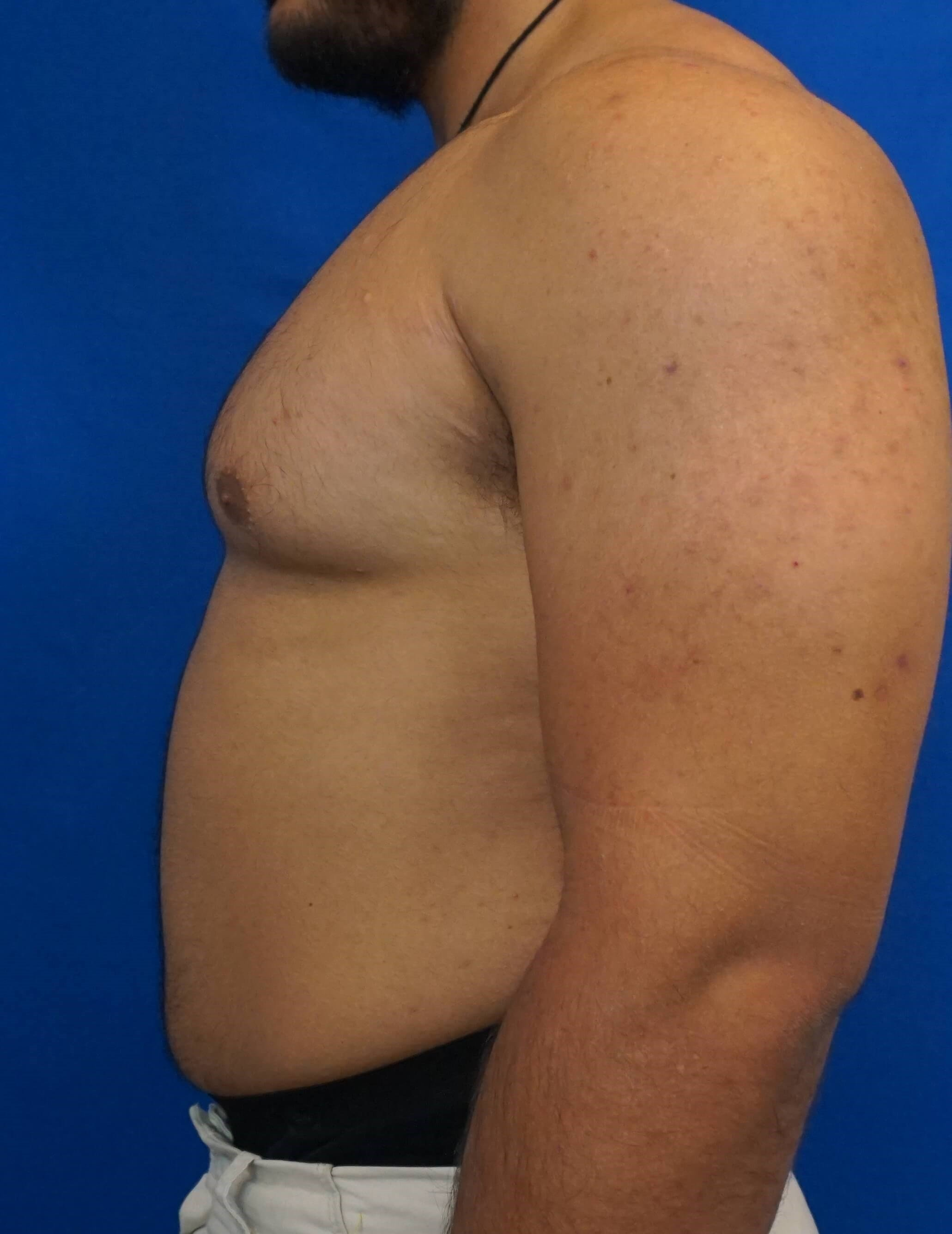 Male Breast Surgery Before